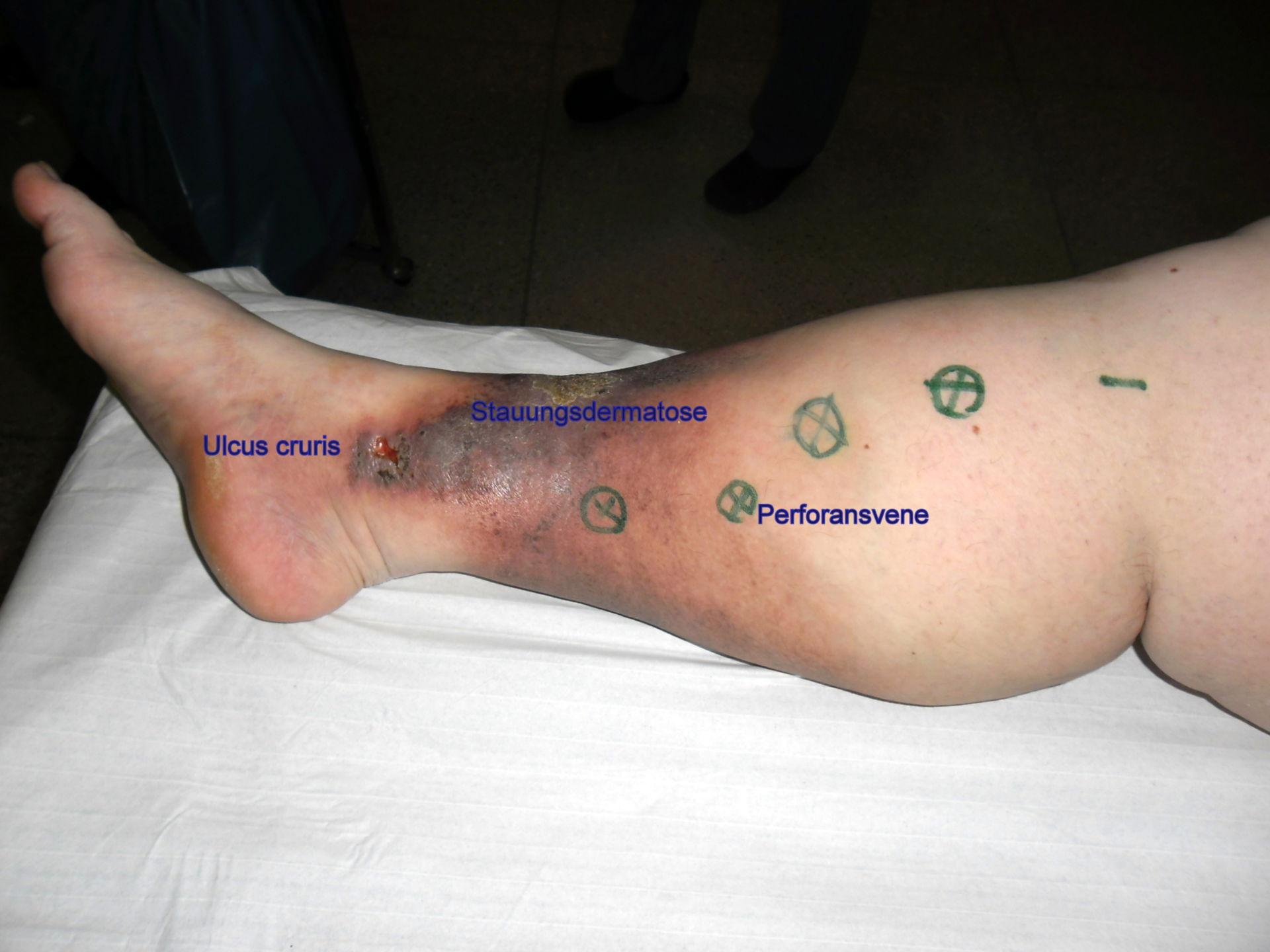 Ulcera en pierna