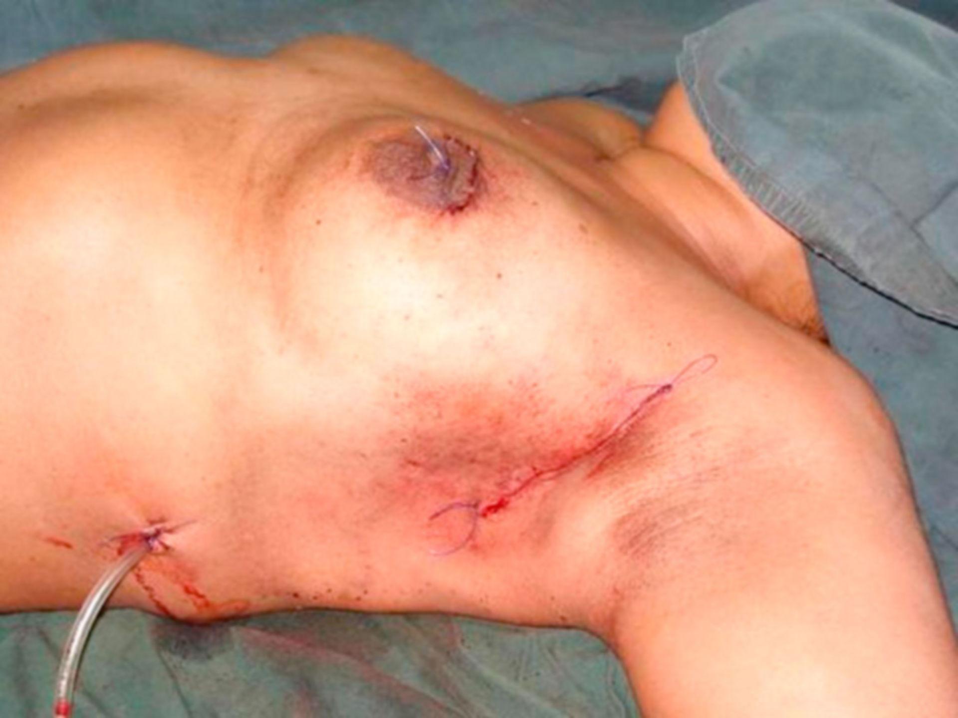 Segmentectomia con la ricostruzione del seno nel cancro al seno (Fig. 8)