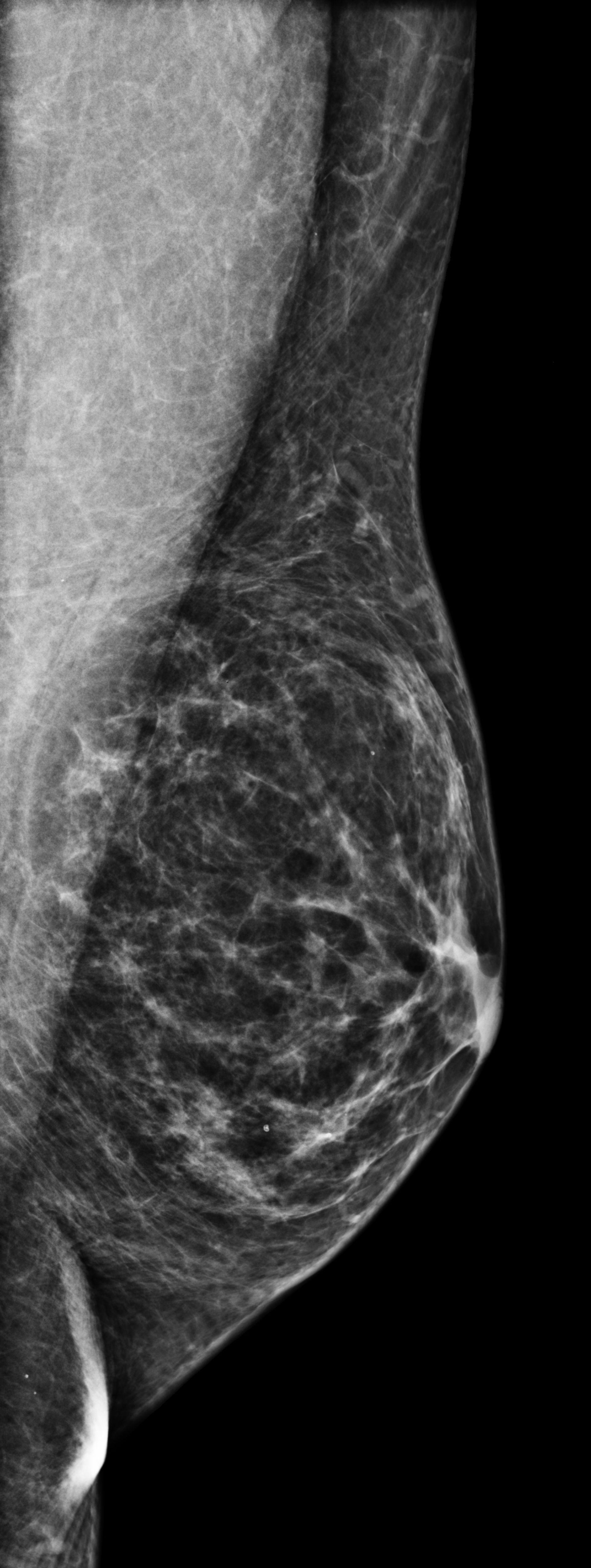 Gynäkomastie (Vergrößerung der männlichen Brustdrüse) II