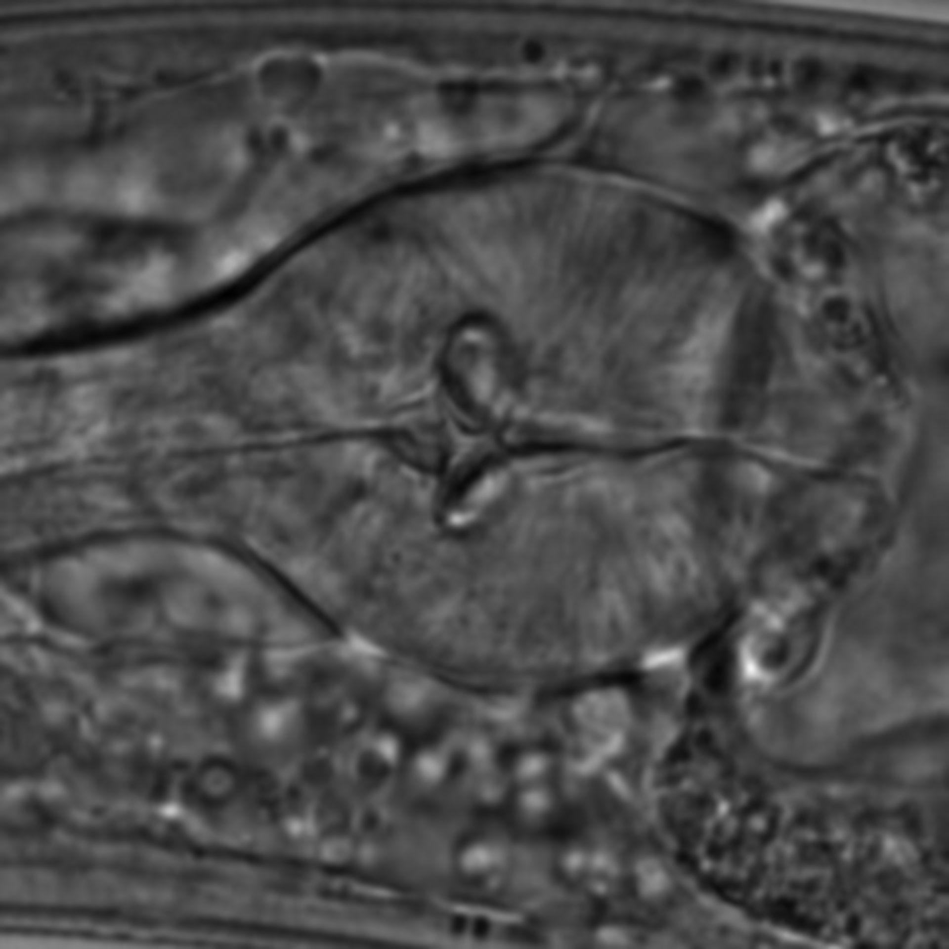 Caenorhabditis elegans - CIL:1613