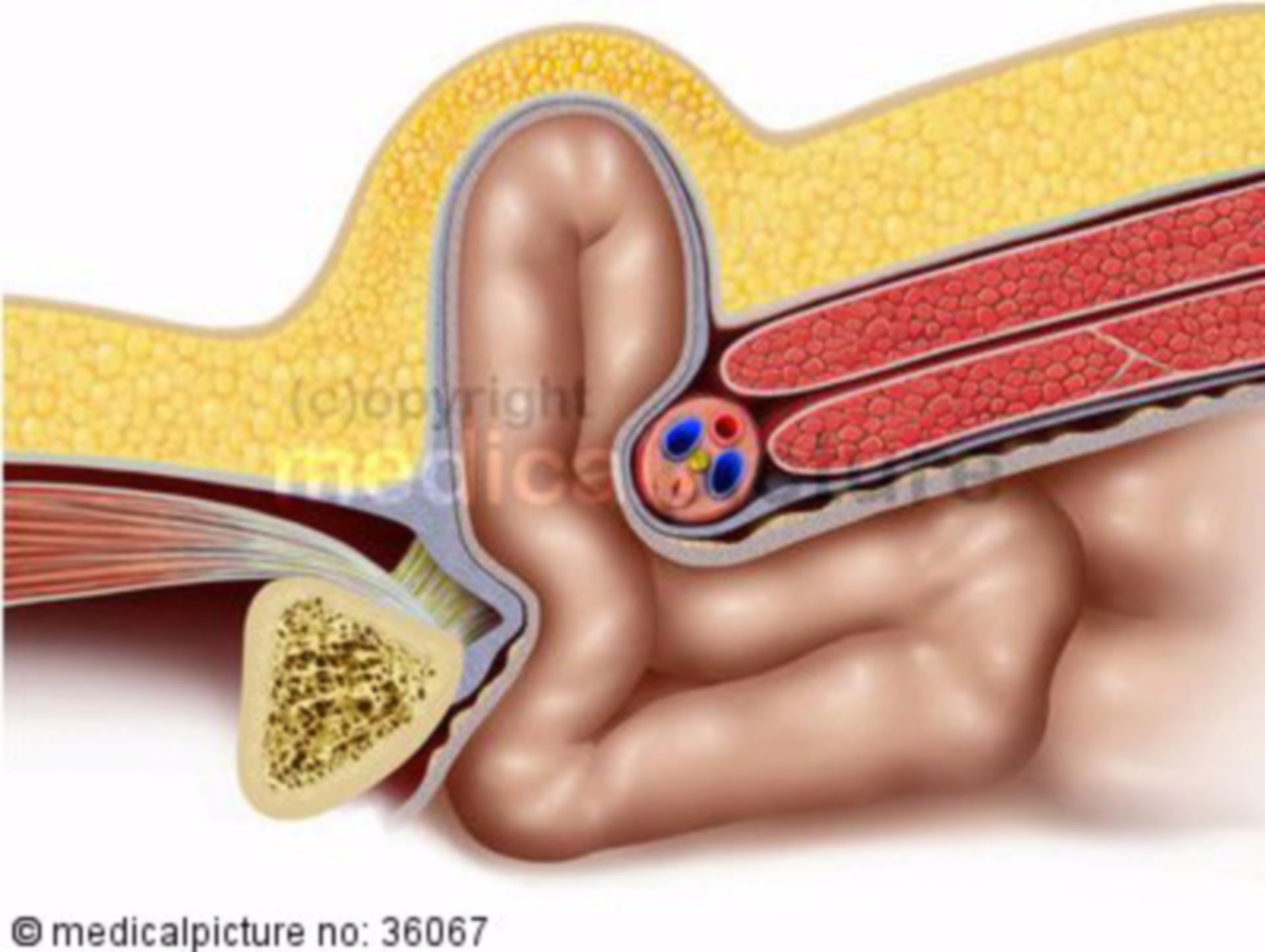 Leistenbruch, Inguinalhernie, inguinal hernia
