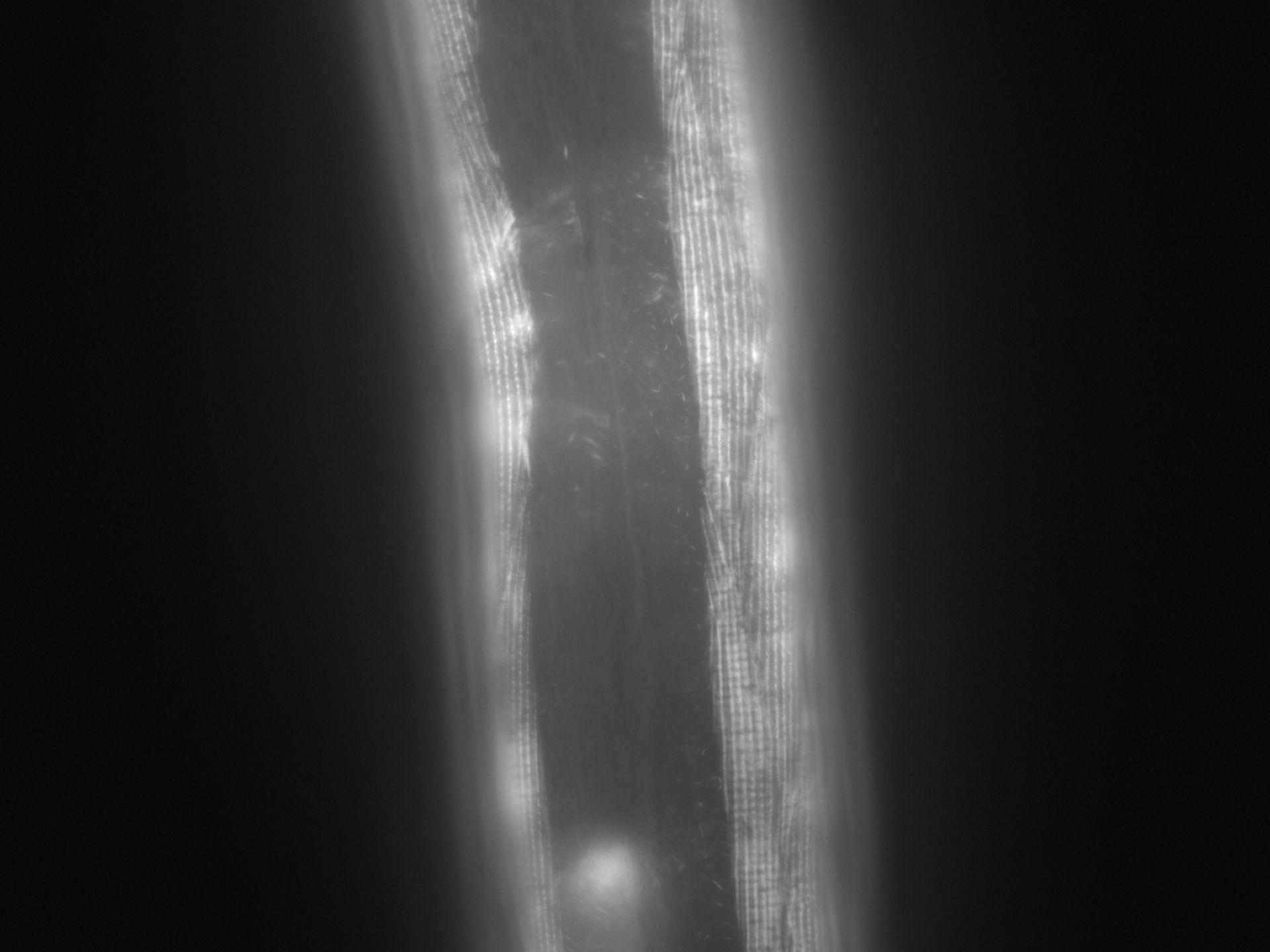 Caenorhabditis elegans (Actin filament) - CIL:1007