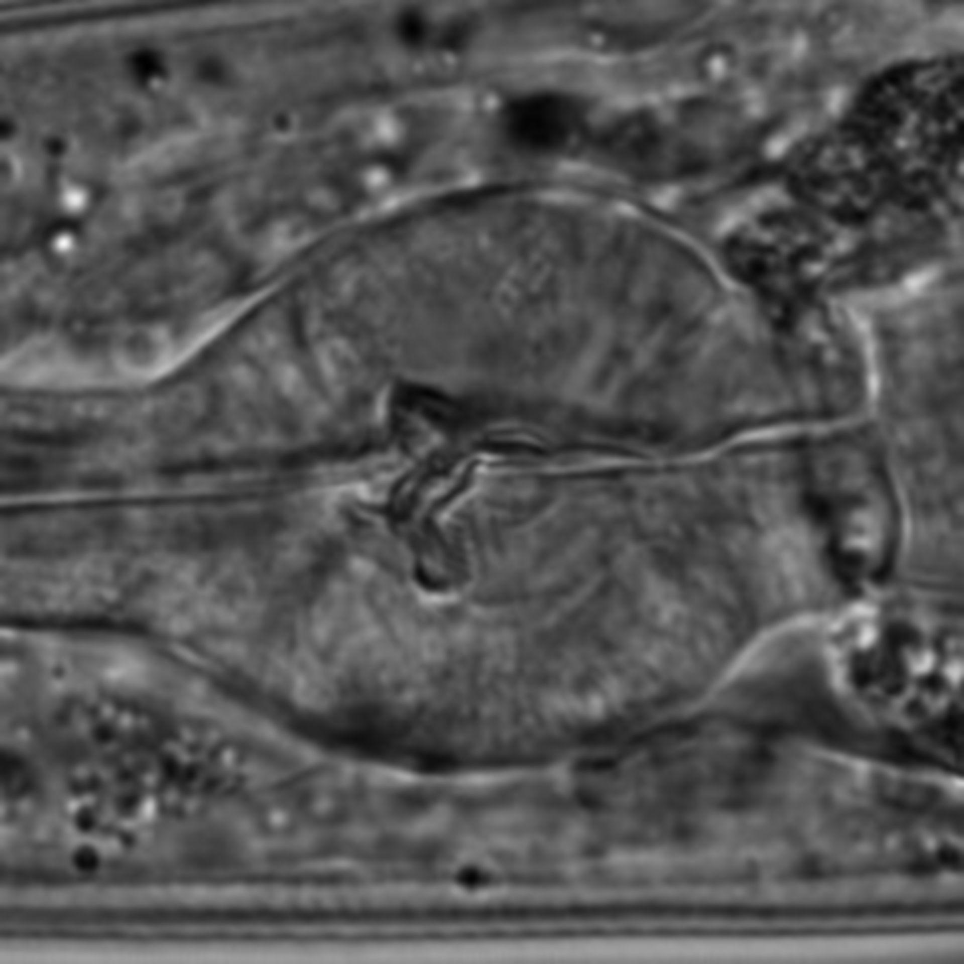 Caenorhabditis elegans - CIL:1601