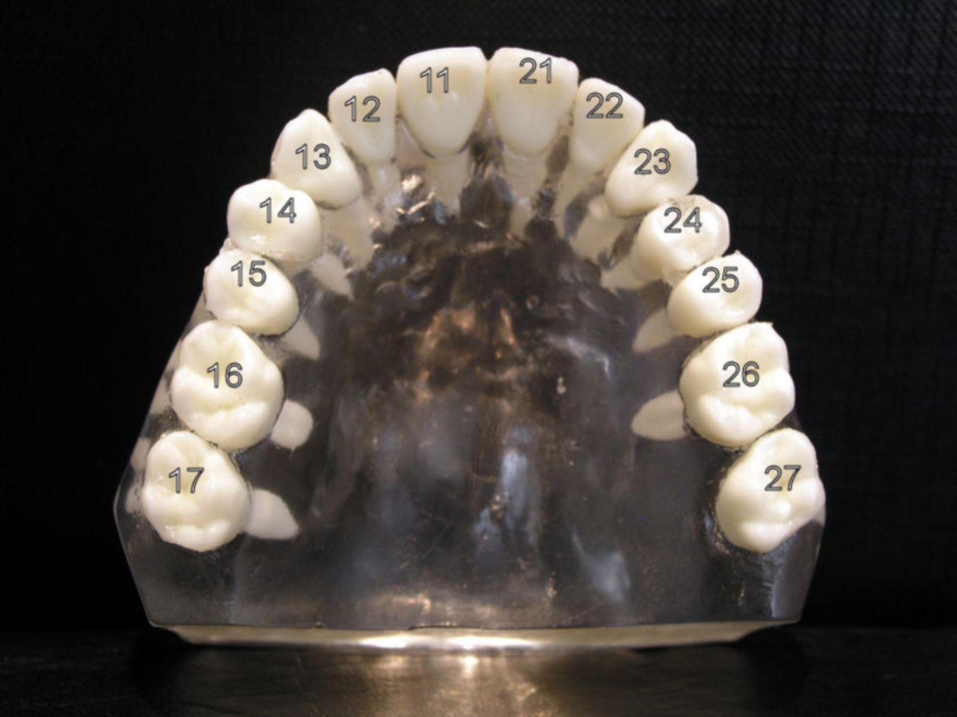 Zahnmodell Oberkiefer