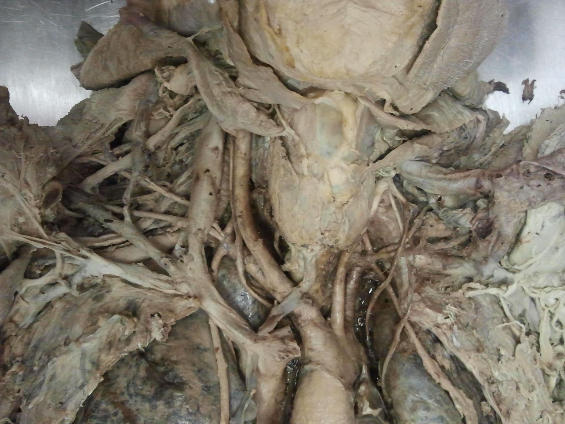 Vena thyreoidea ima