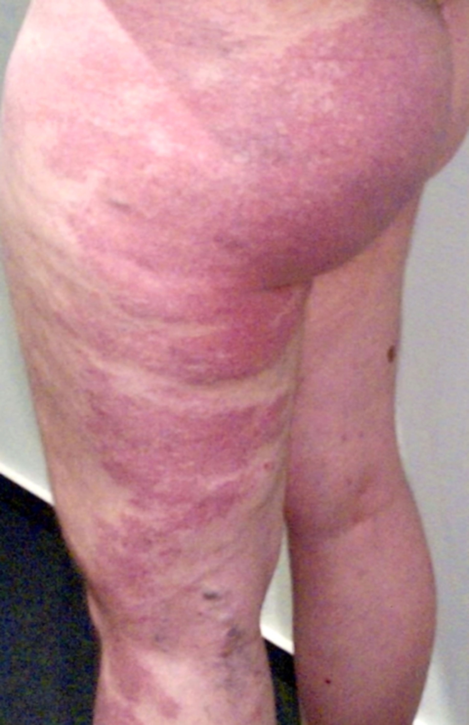 Klippel-Trénaunay syndrome