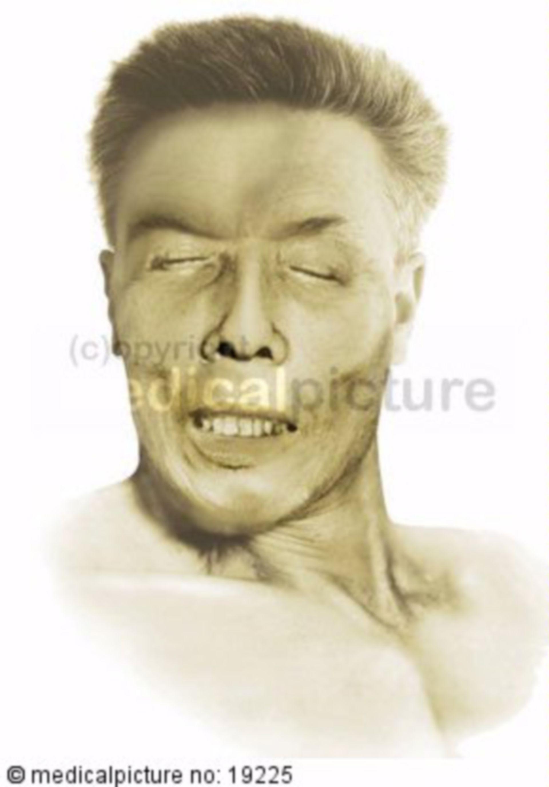 Tetanus Gesicht
