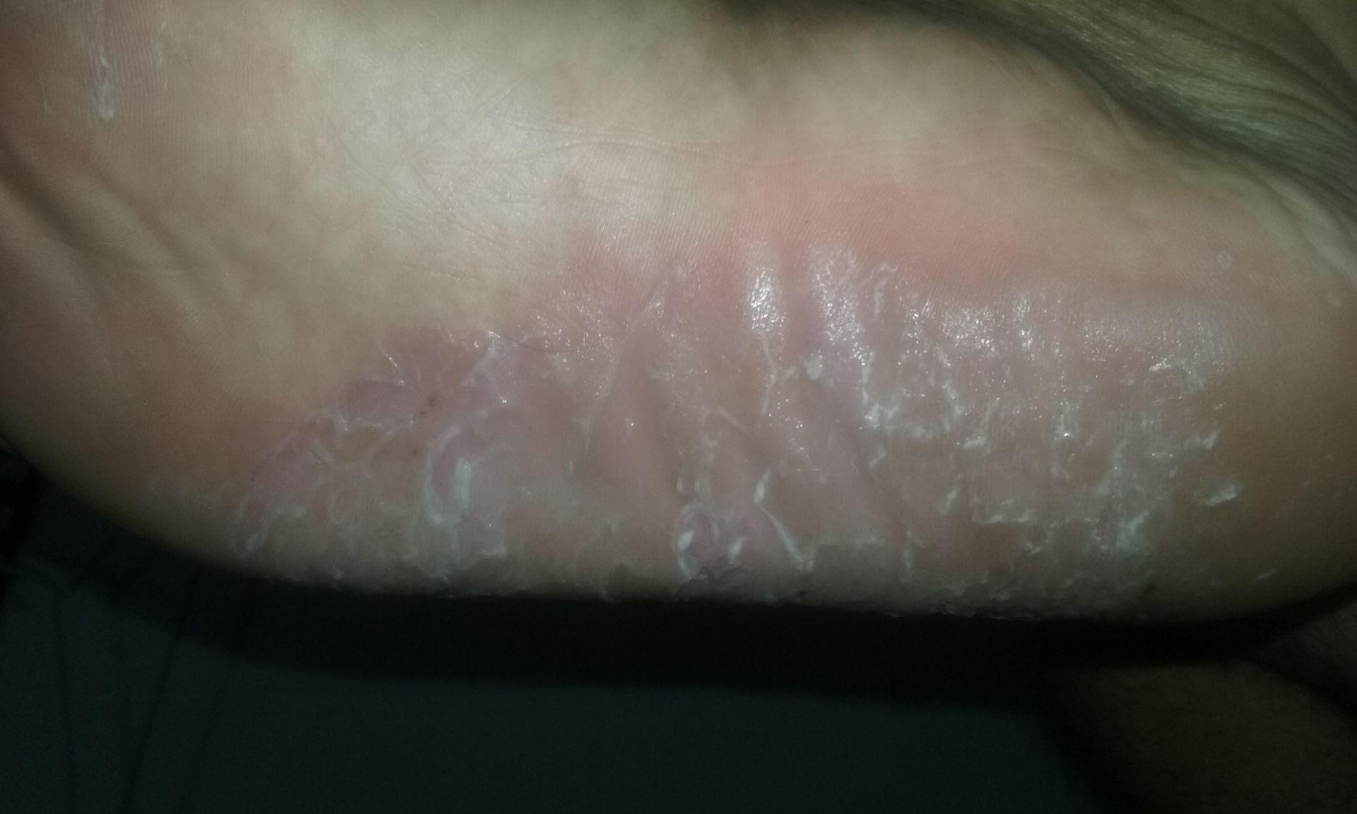 dishidrosis lamelar luego de 10 meses de tratamiento