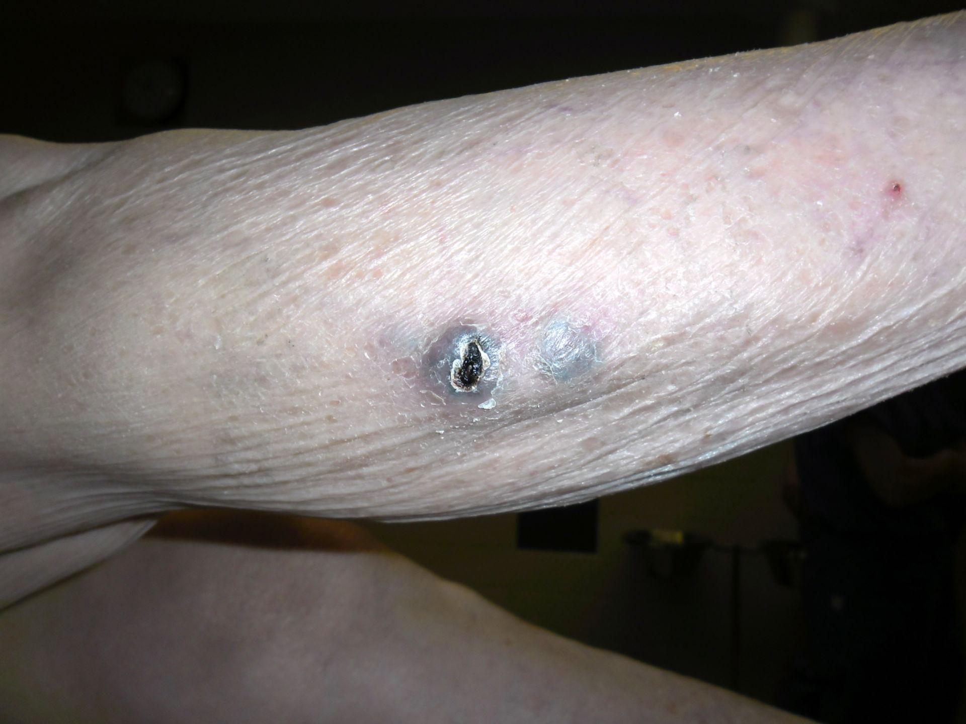 Melanoma- 2 metastasis en la pierna inferior