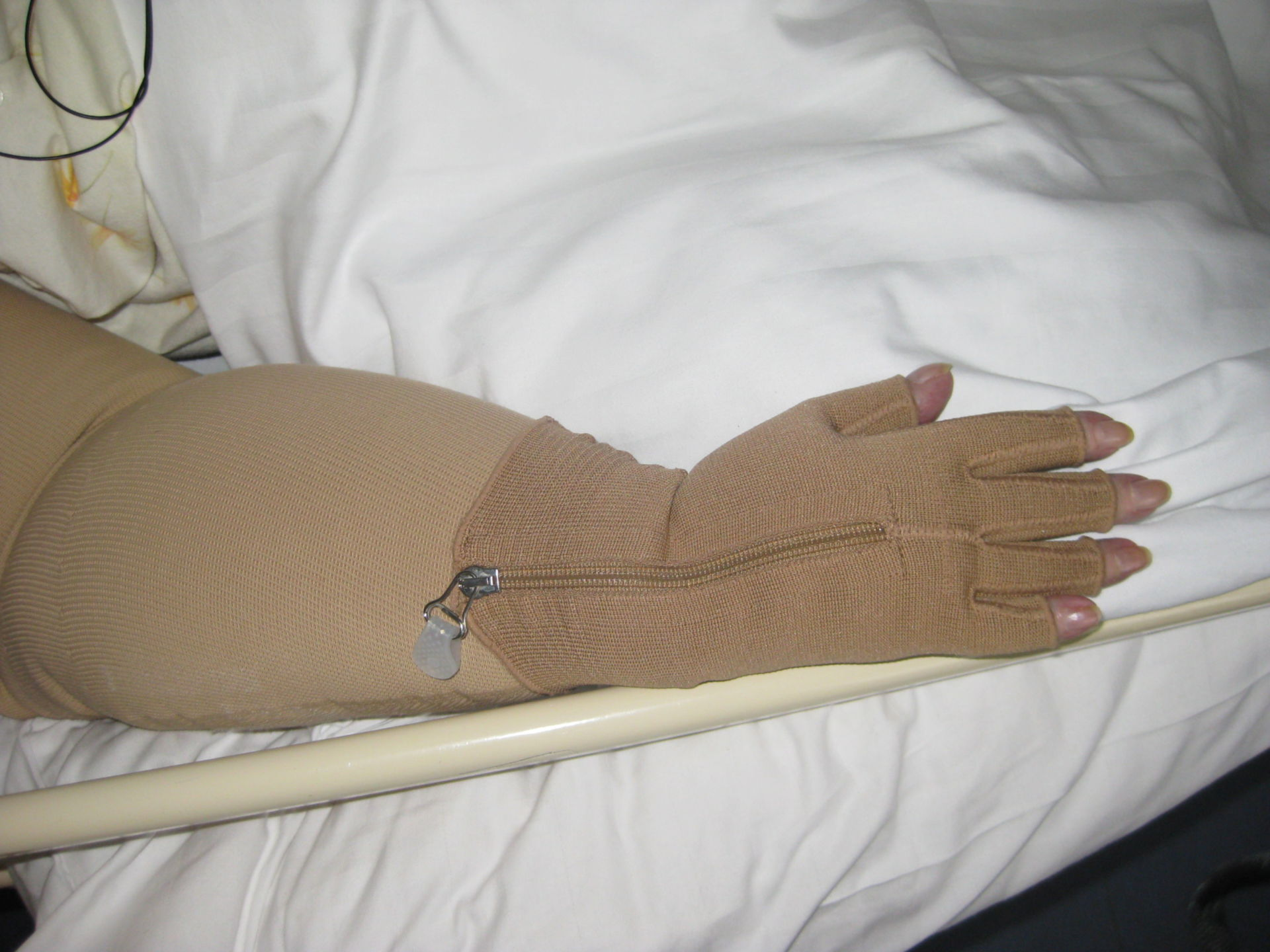 Compression glove for the treatment of lymphedema