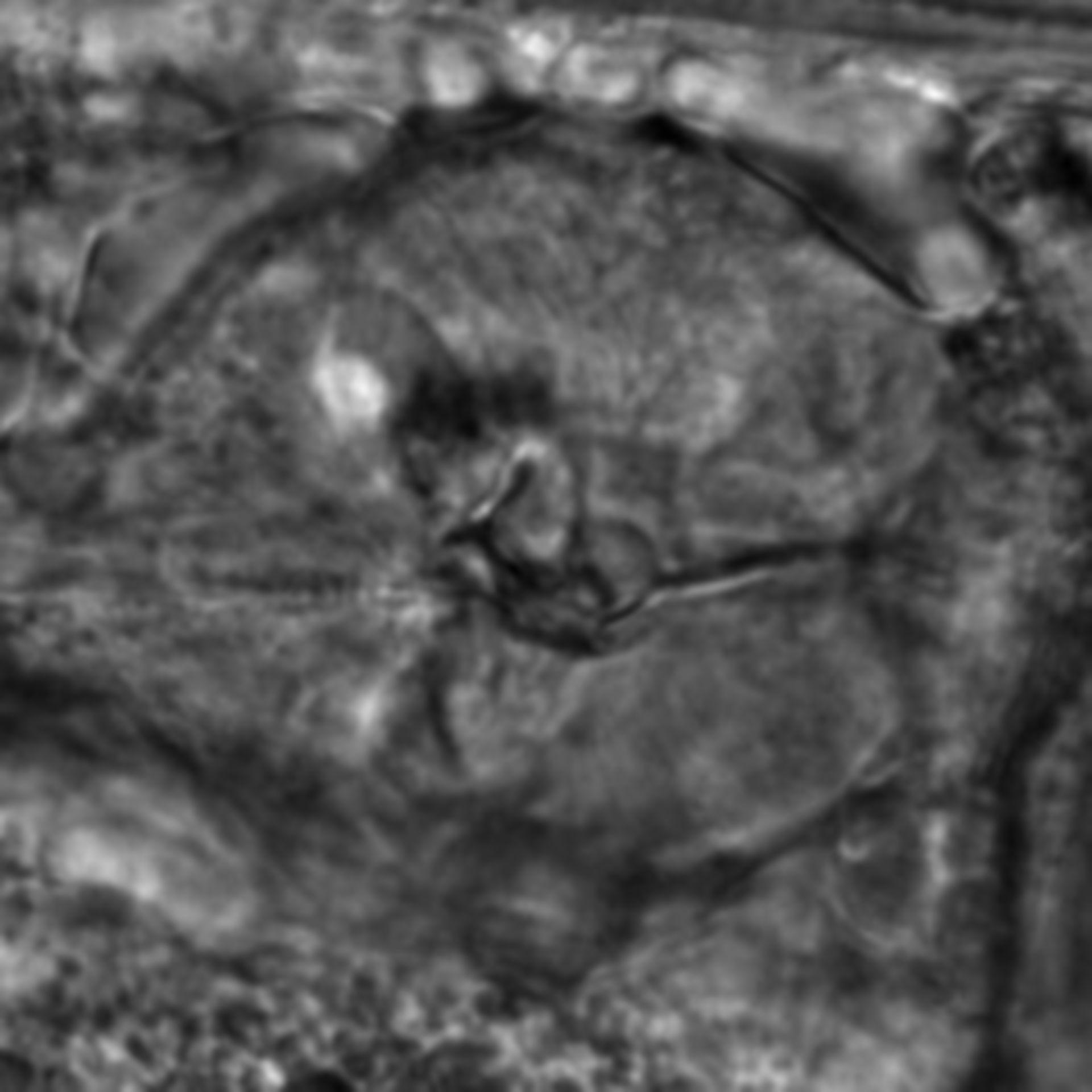 Caenorhabditis elegans - CIL:2827