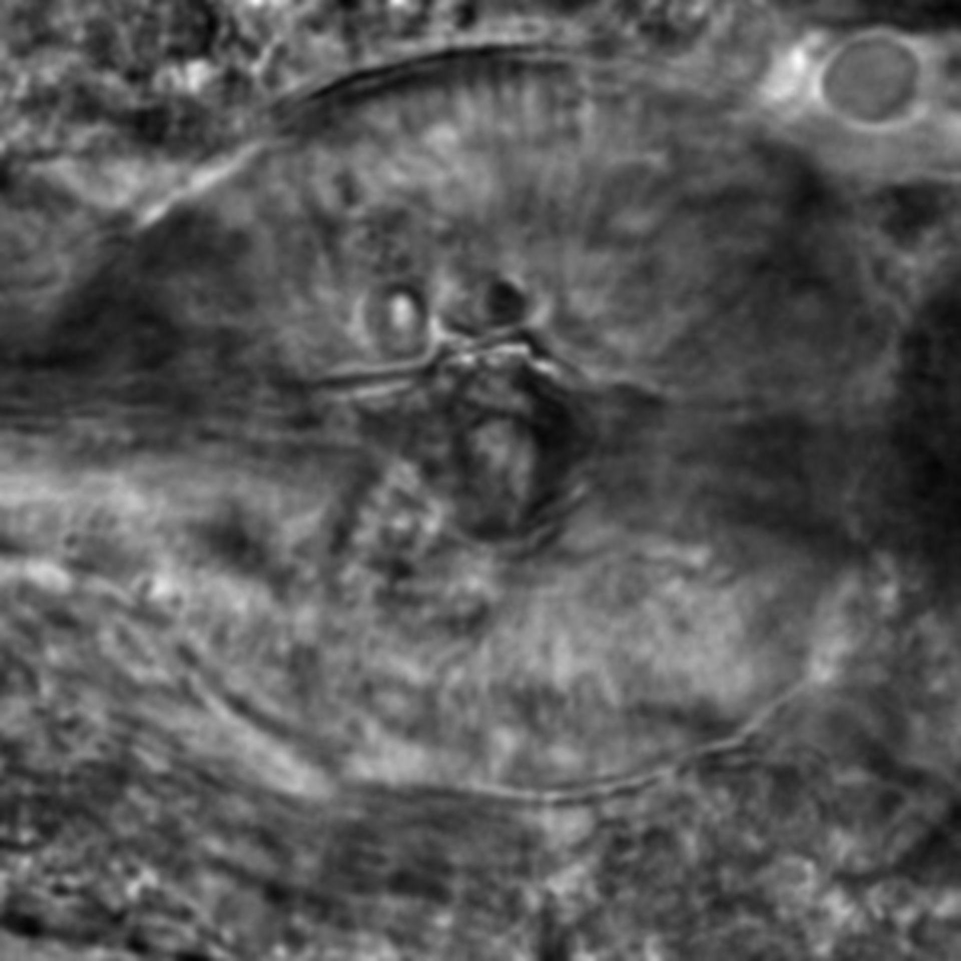 Caenorhabditis elegans - CIL:2819