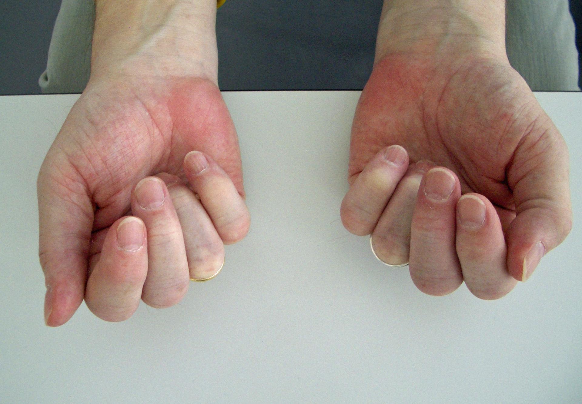 Fist in a patient with rheumatoid arthritis