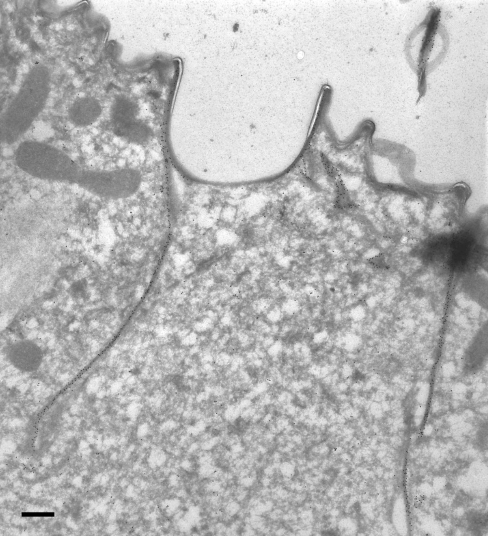 Paramecium tetraurelia (citoscheletro micrtotubulo corticale) - CIL:9852