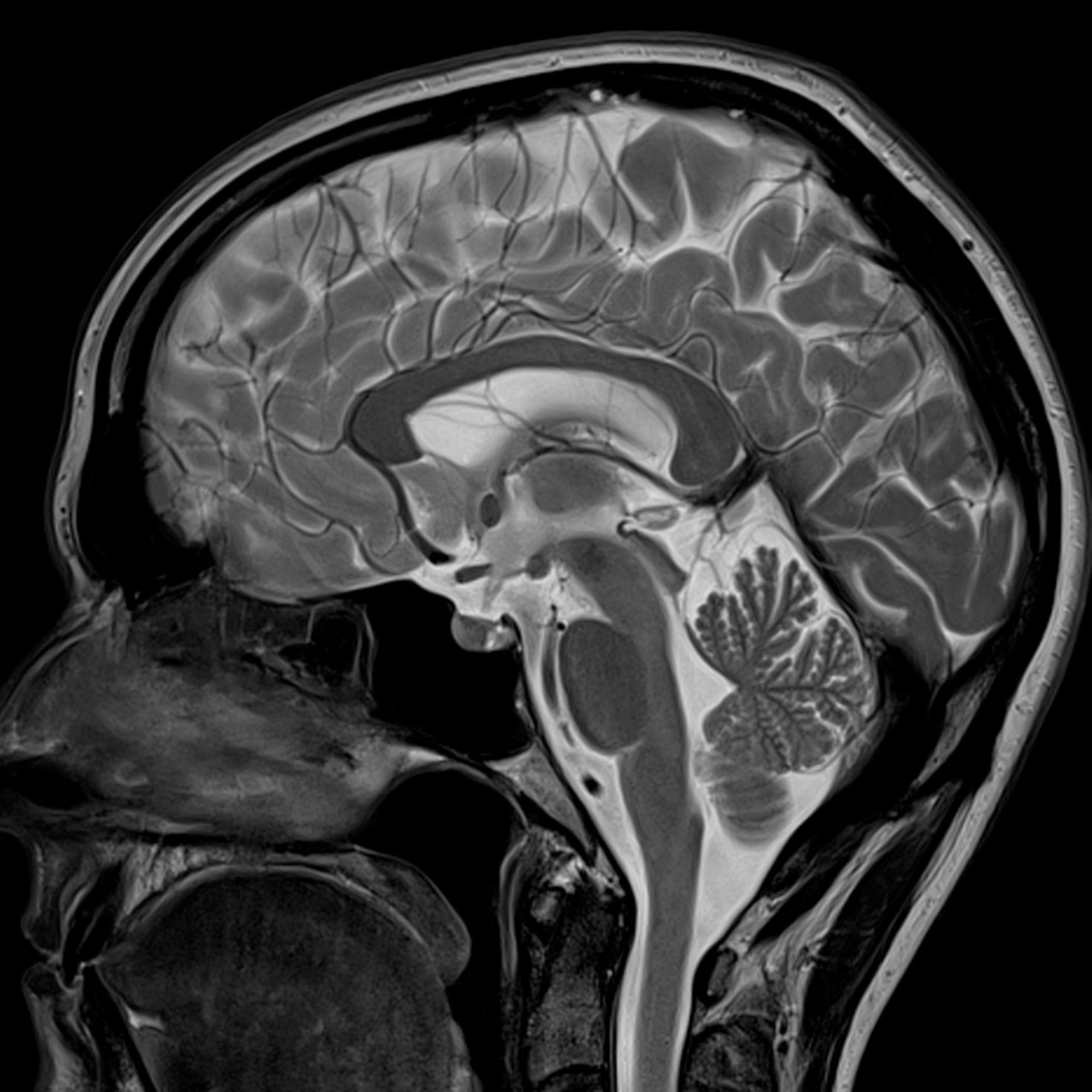 IRM de la cabeza, sagital (tomografía de resonancia magnética Magnetom Spectra)