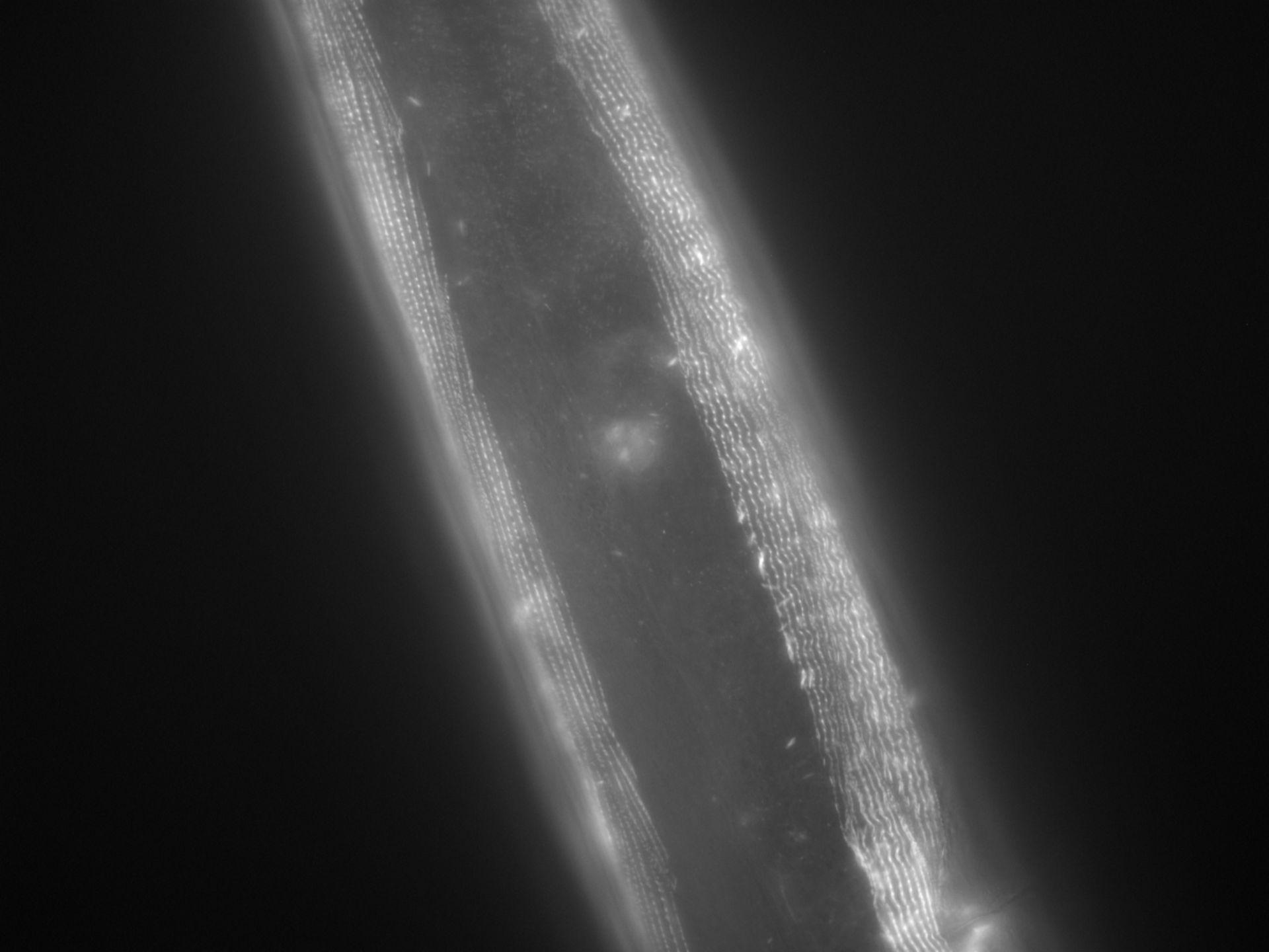 Caenorhabditis elegans (Actin filament) - CIL:1042
