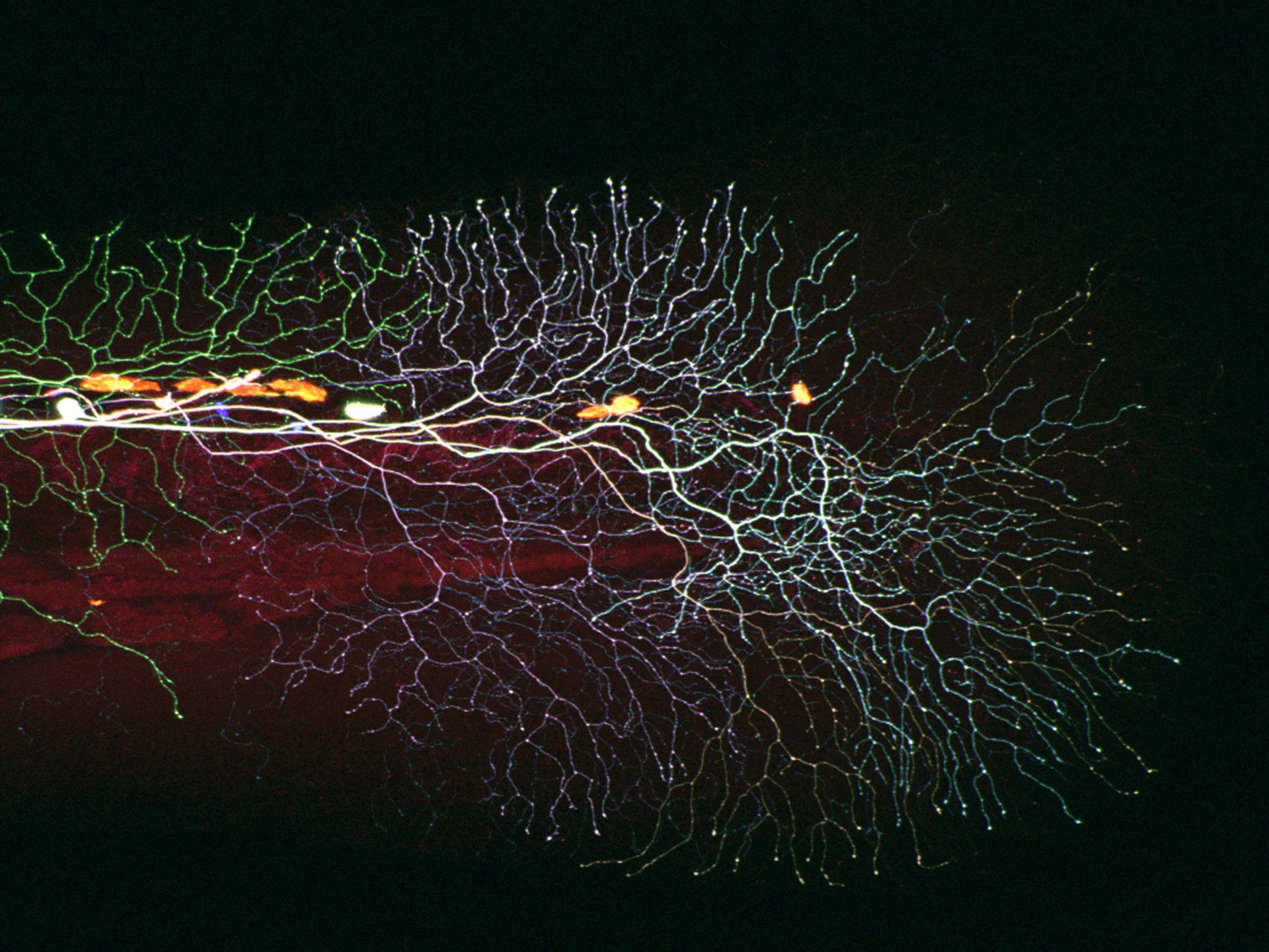 Sensorische Axone