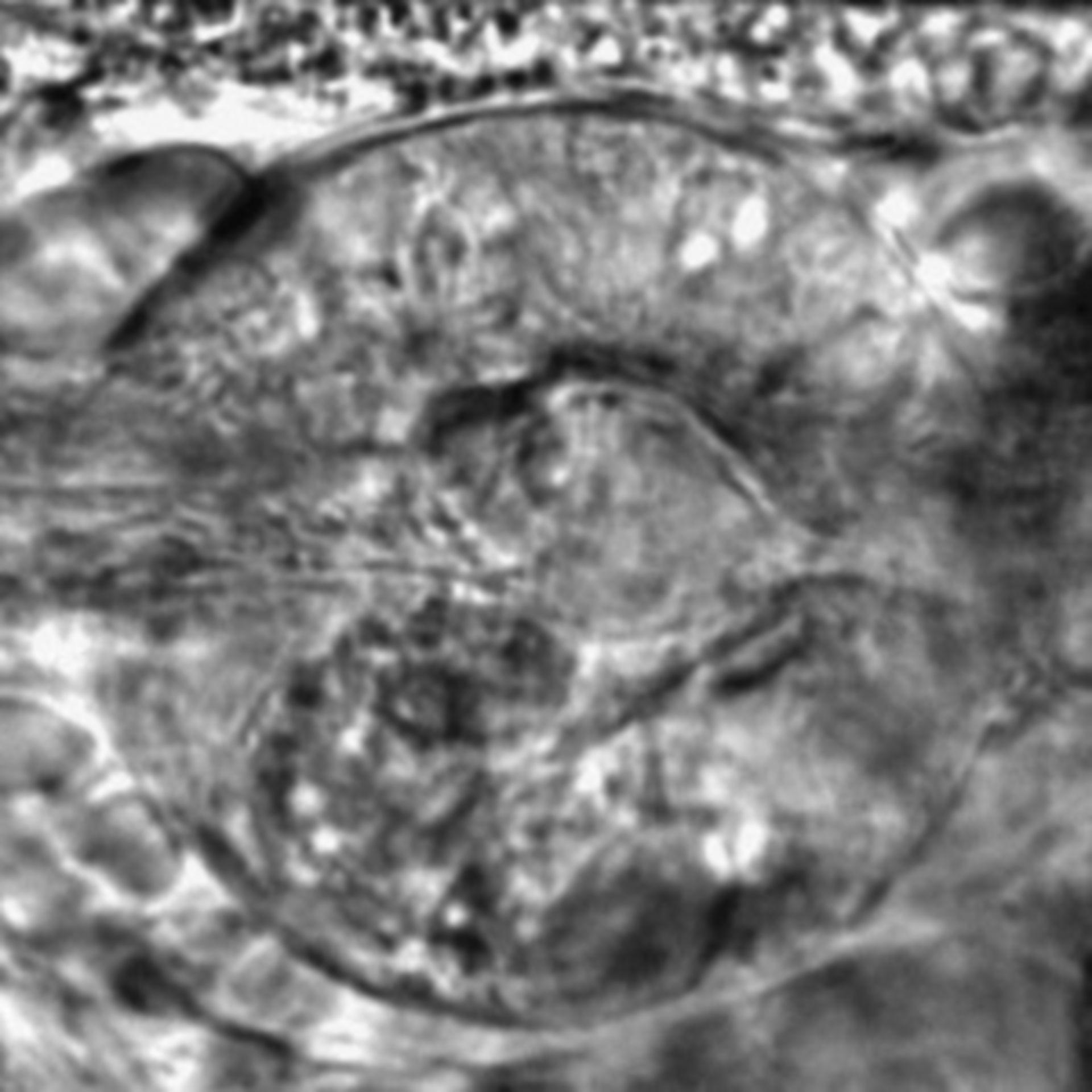Caenorhabditis elegans - CIL:2599