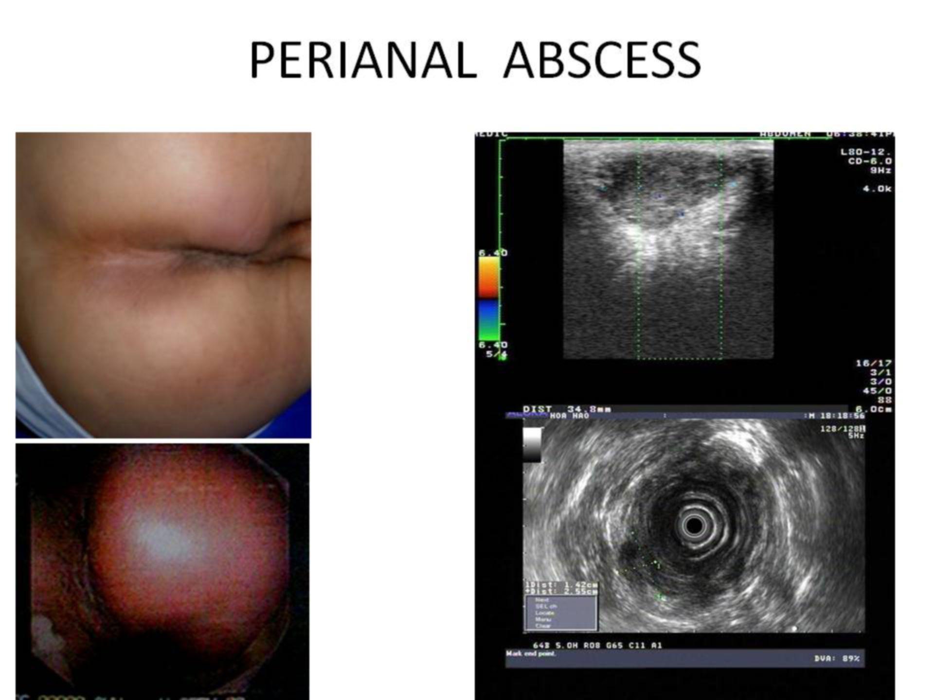 Perianalabszess im Ultraschall