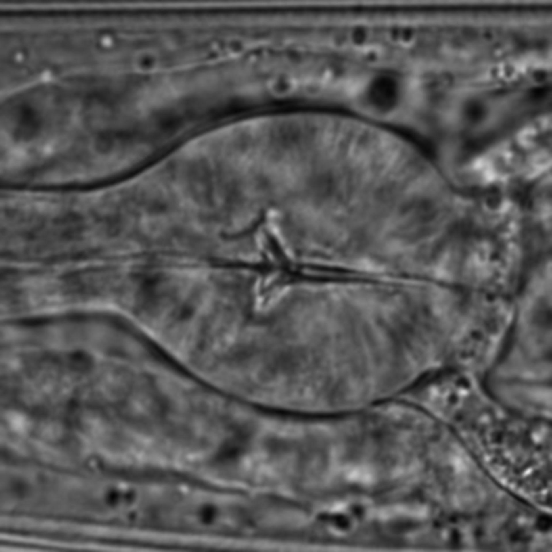 Caenorhabditis elegans - CIL:1593