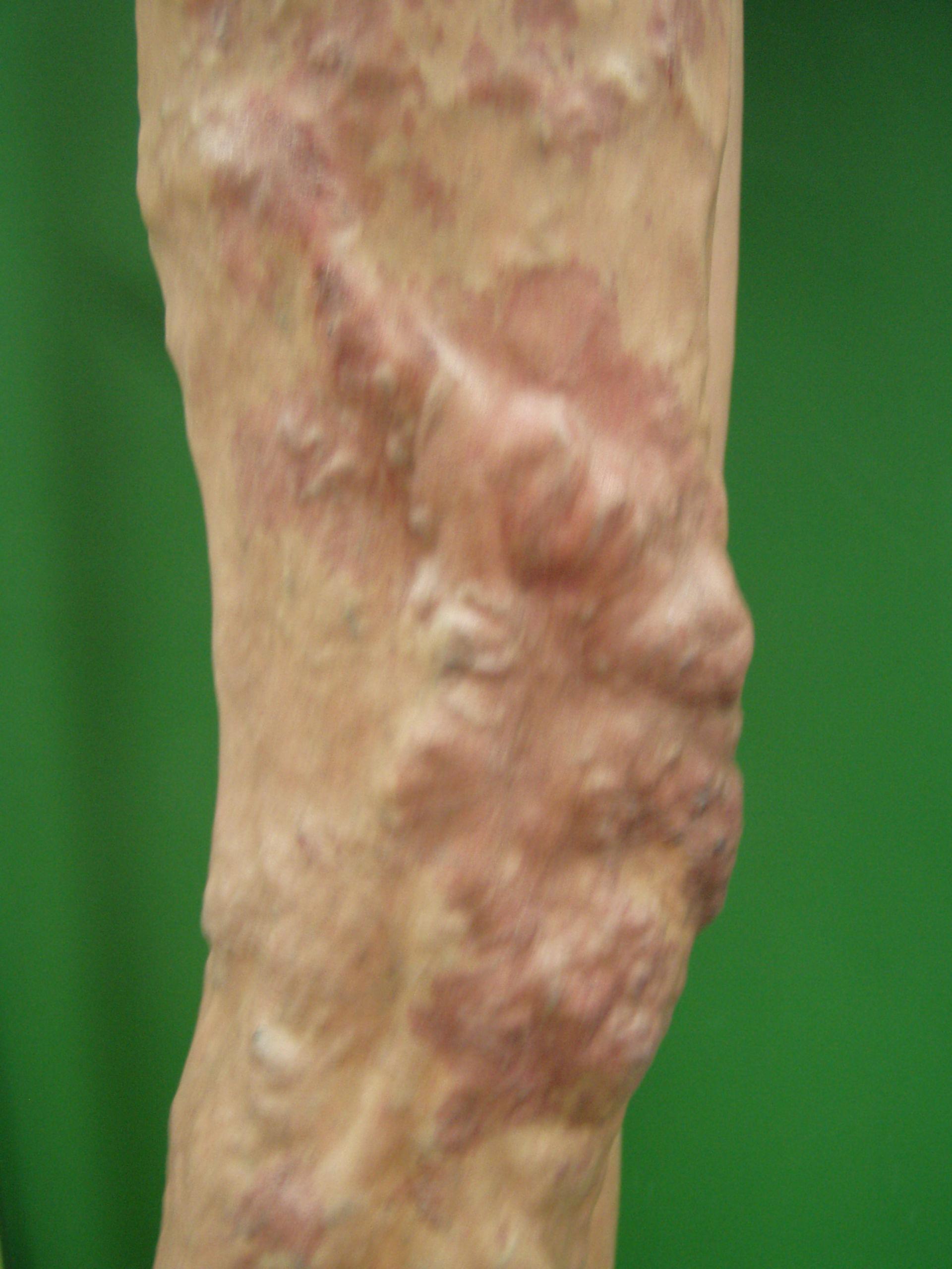 Klippel-Trénaunay-Syndrom 2