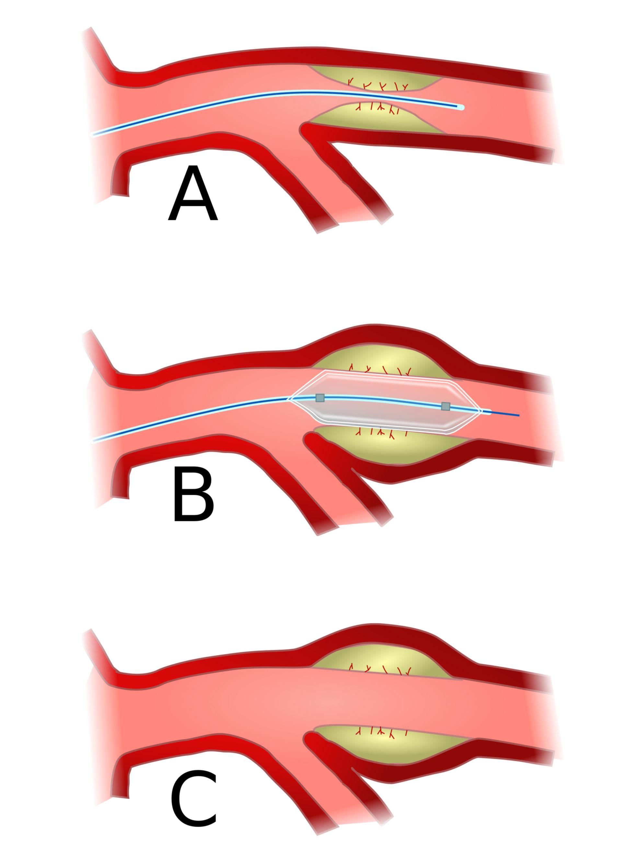 Koronarangioplastie (PTCA)
