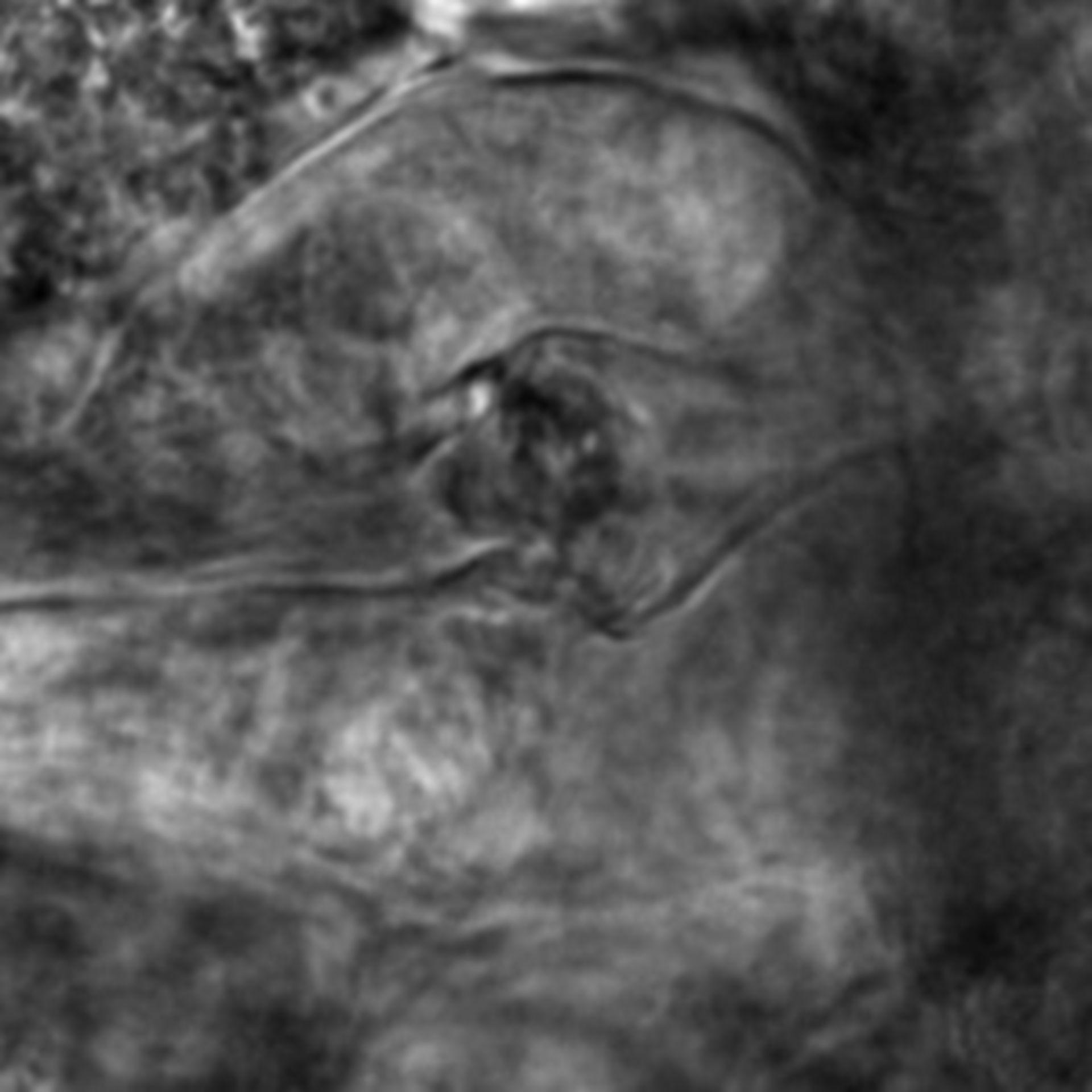 Caenorhabditis elegans - CIL:2303