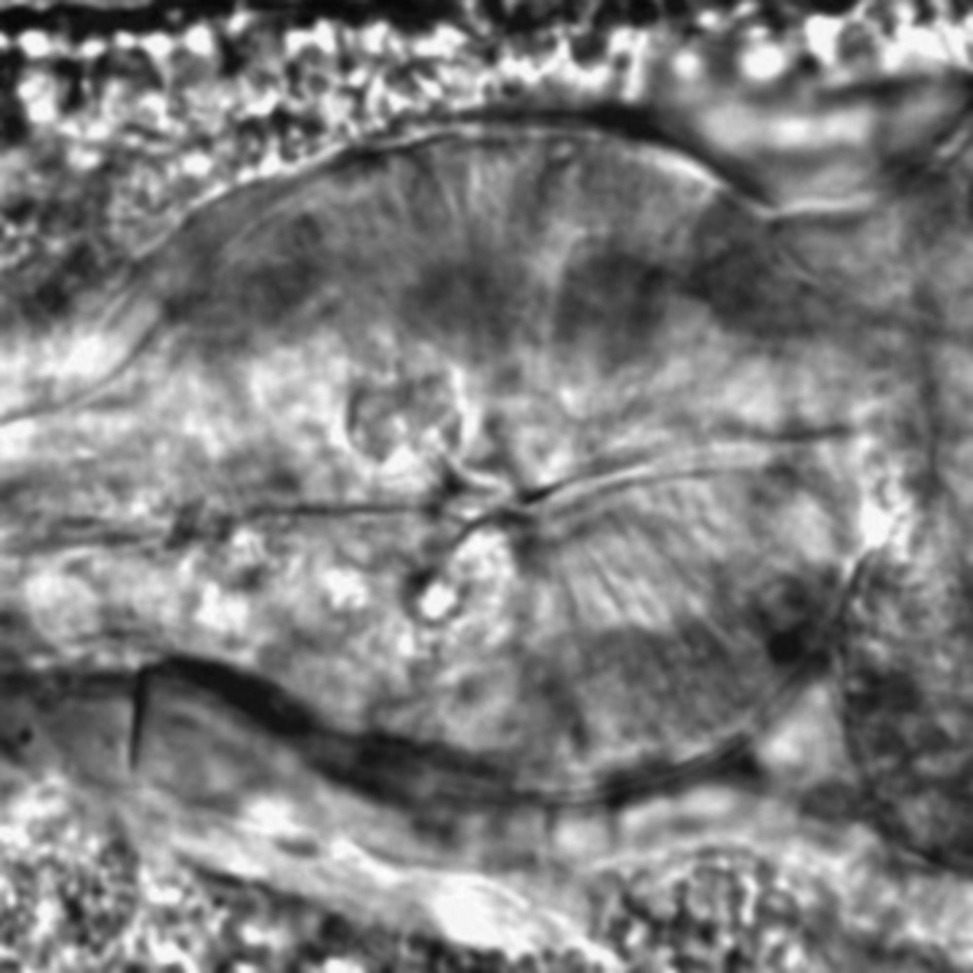 Caenorhabditis elegans - CIL:2000