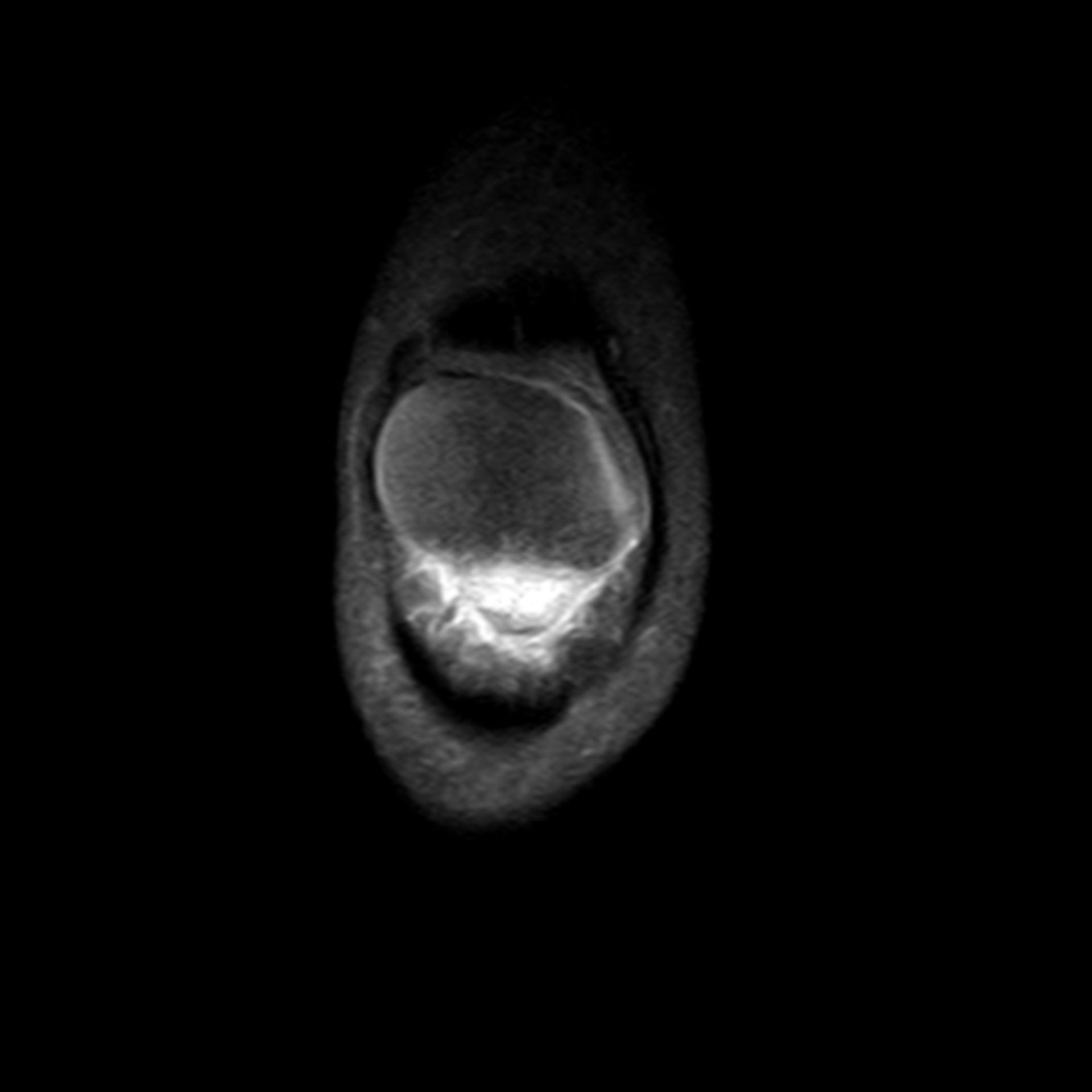 IRM de la rótula (3)