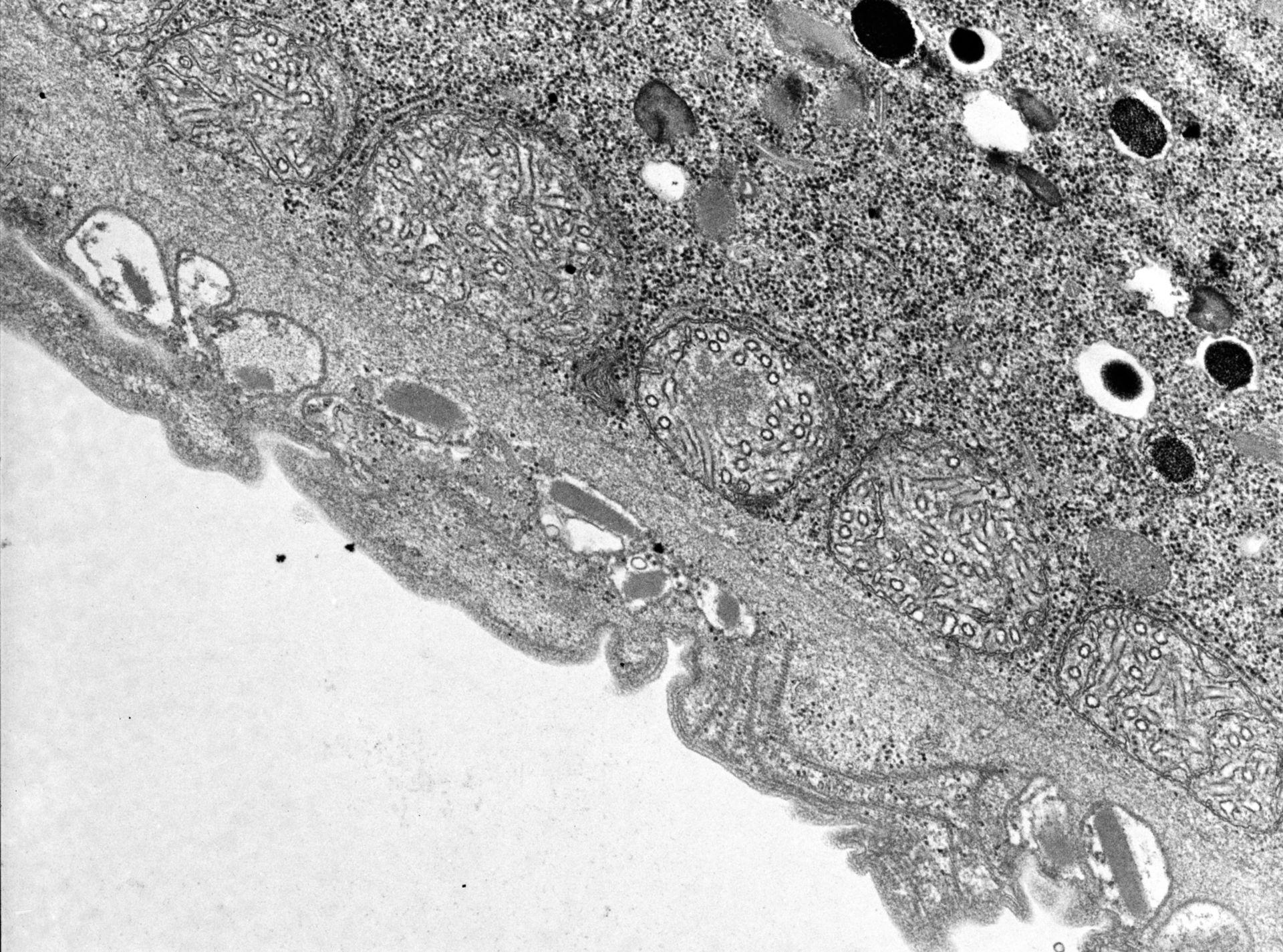 Didinium nasutum (estrusione) - CIL:9928