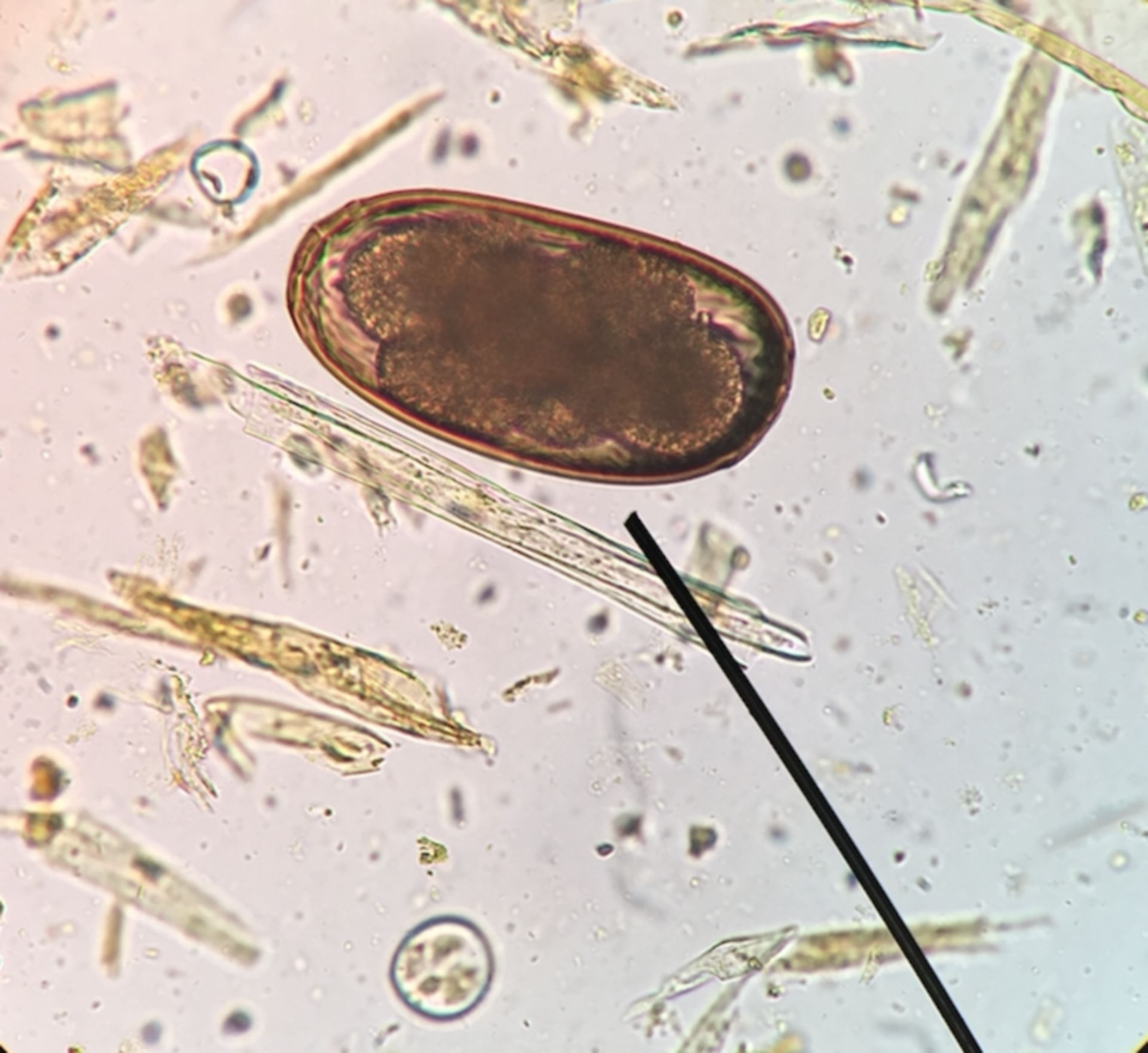 Nematodirus spp.