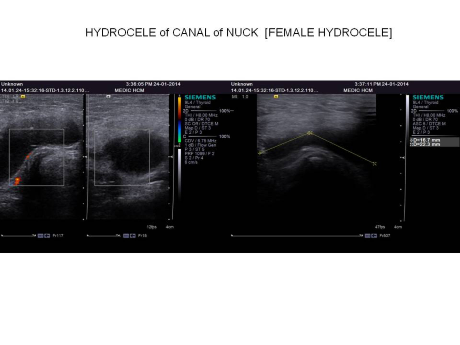 Hydrocele of canal of nuck