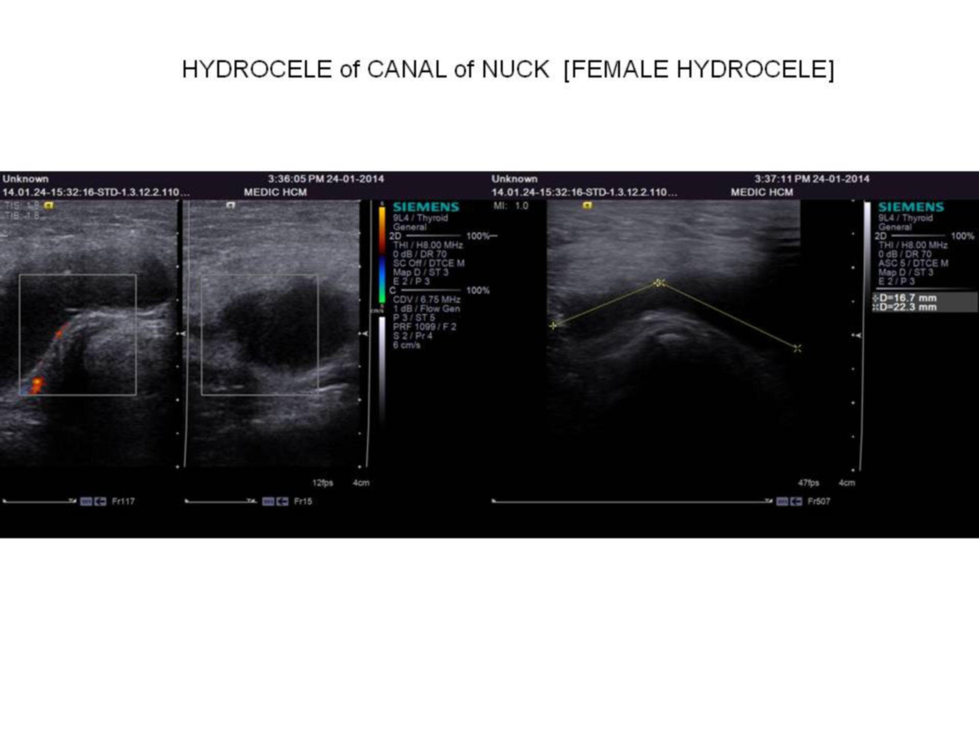 Hydrozele - Sonographie