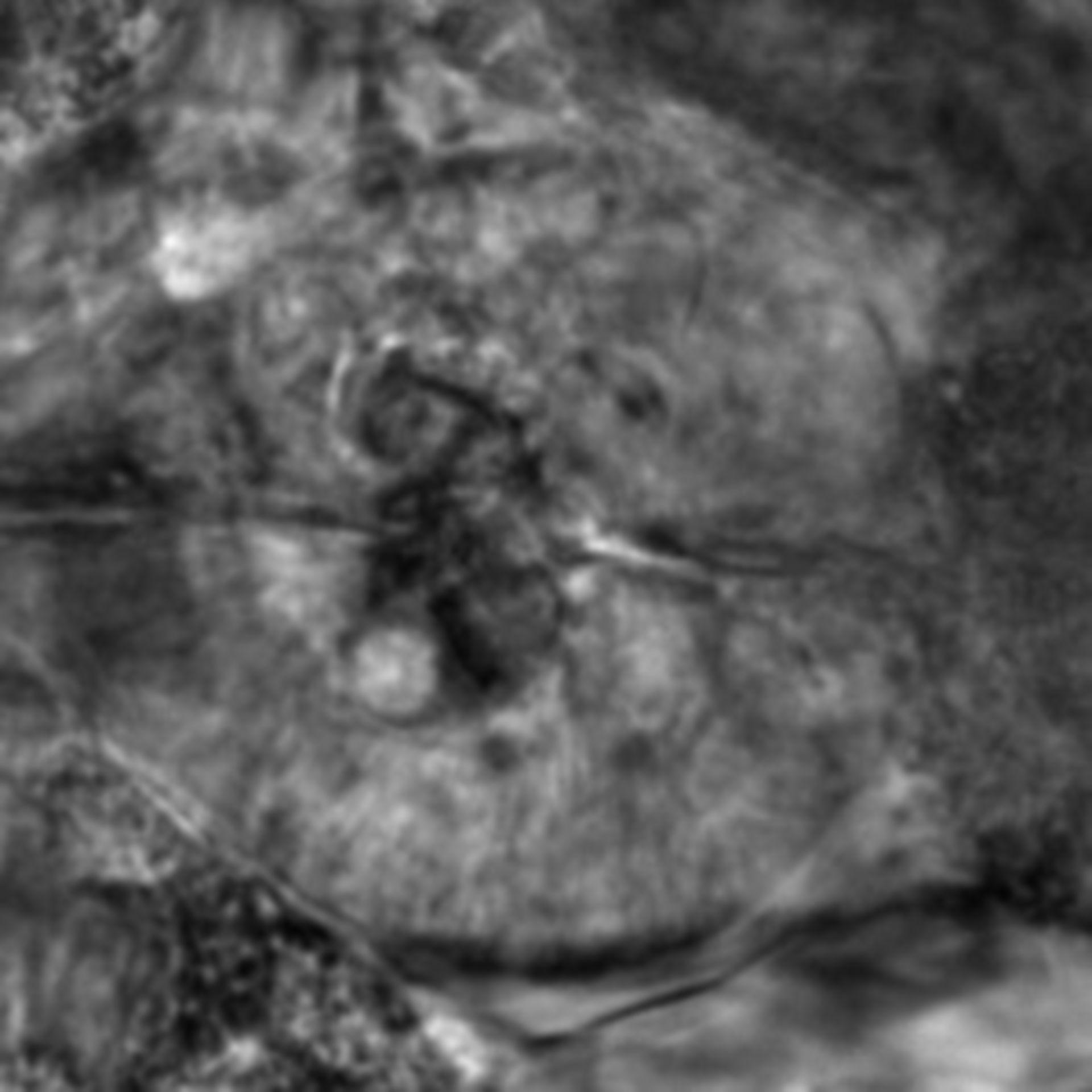 Caenorhabditis elegans - CIL:2675