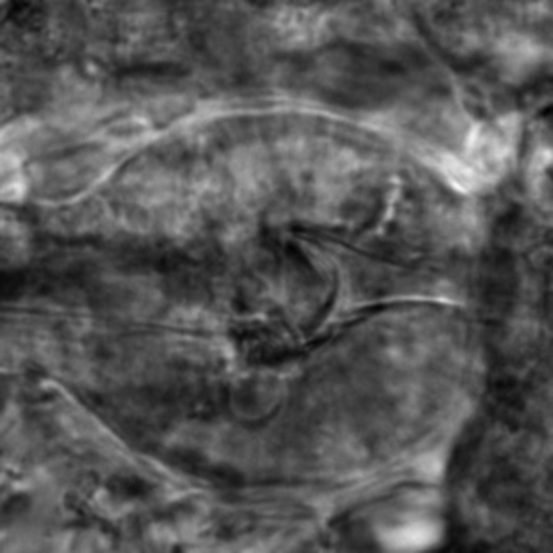 Caenorhabditis elegans - CIL:2782