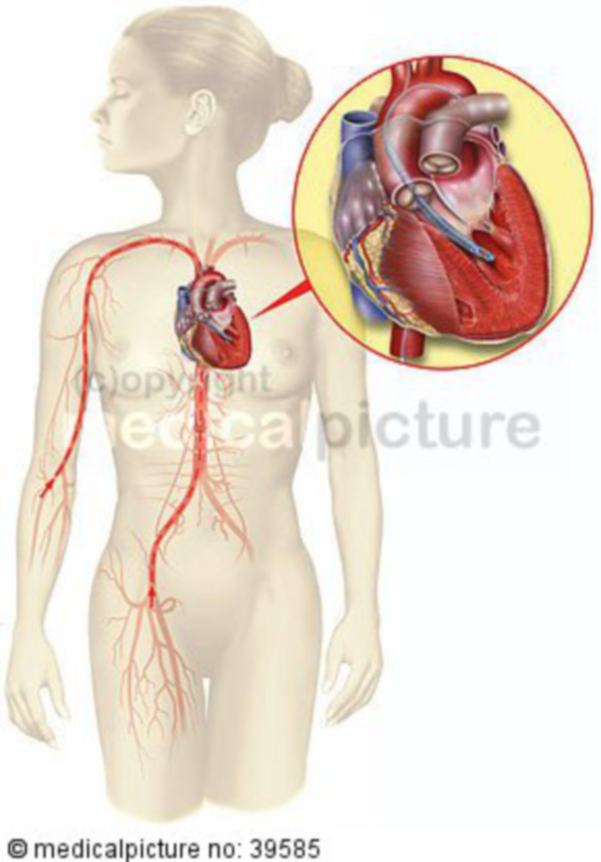 Minimally invasive heart pump