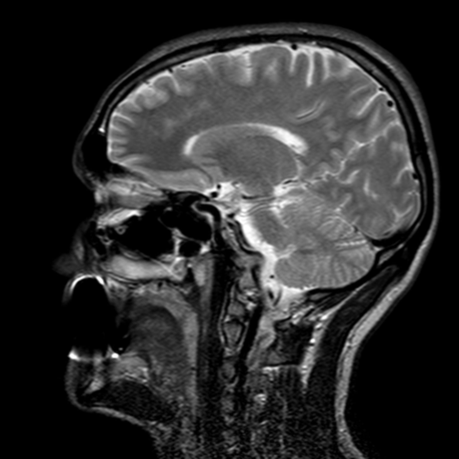 (20/34) MRT Schädel in Sagittalebene, T₂‐gewichtet