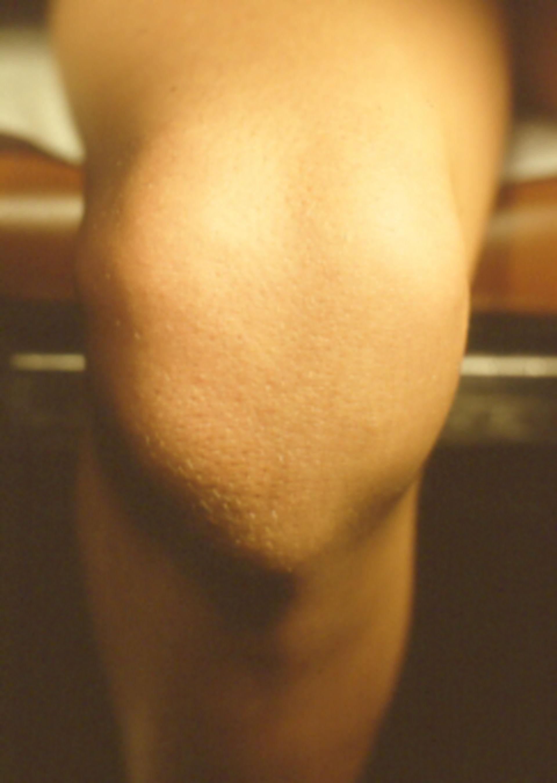 Nagel-Patella-Syndrom