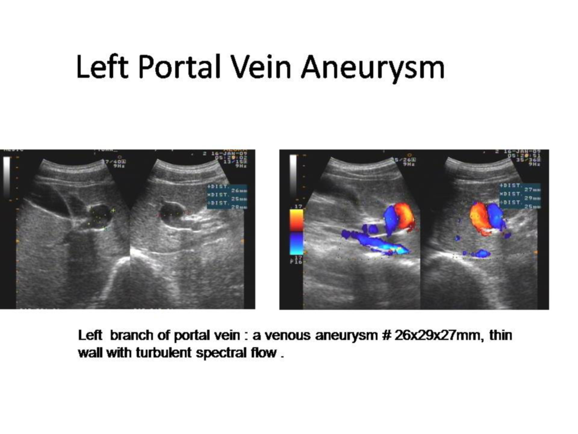 Aneurysma in der linken Vena portae (1)