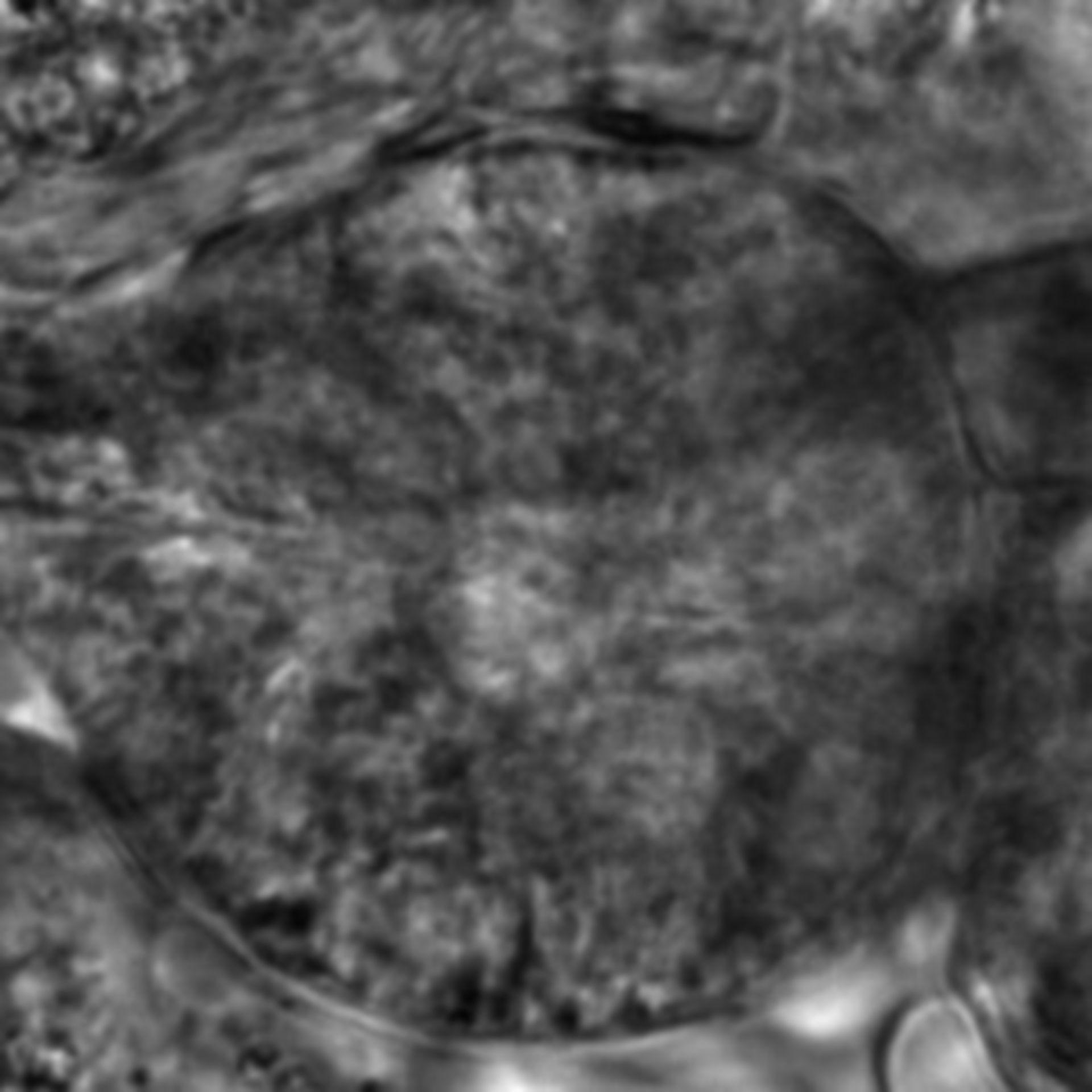 Caenorhabditis elegans - CIL:2747