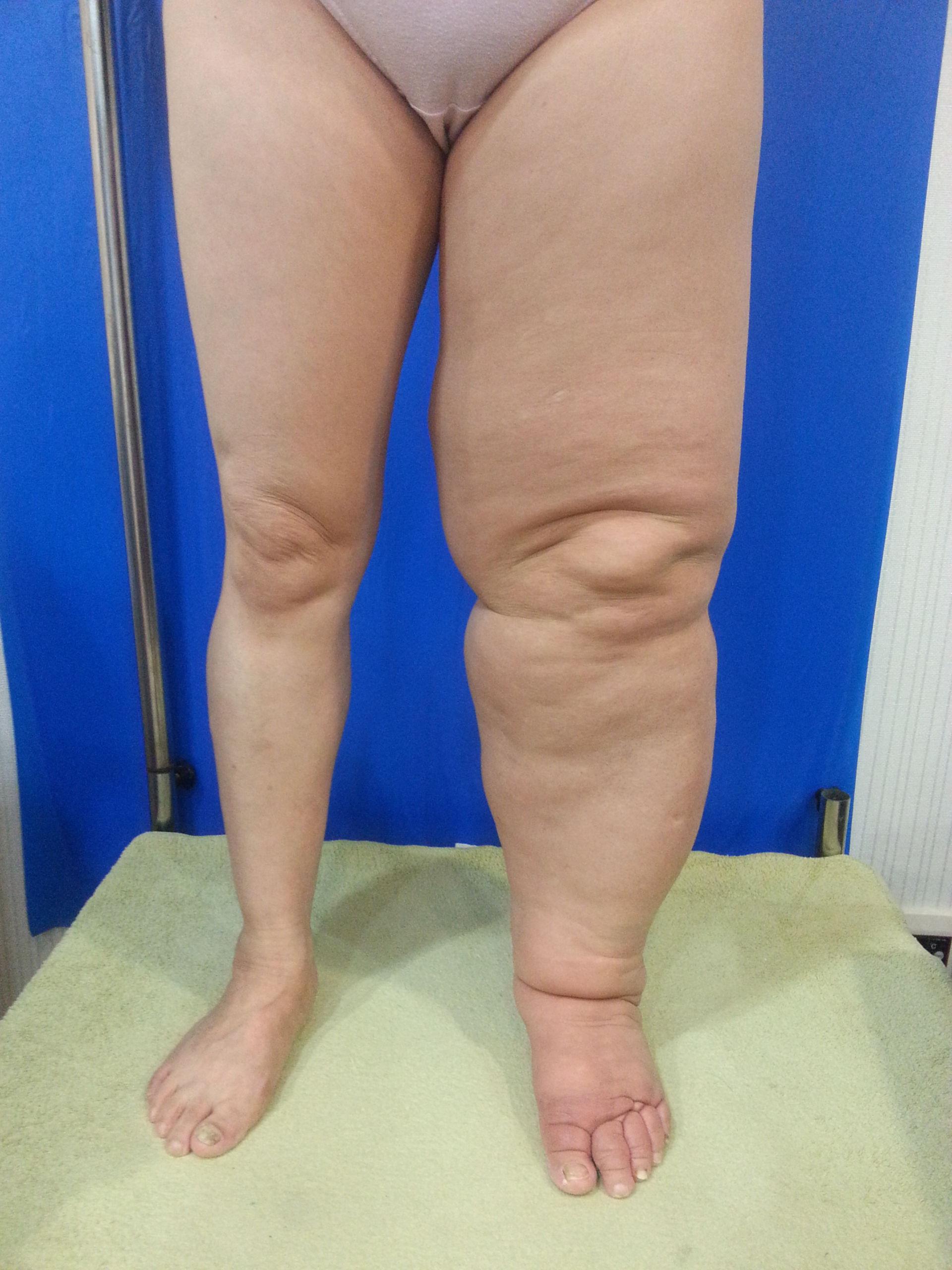 Lymphödem linkes Bein (2)