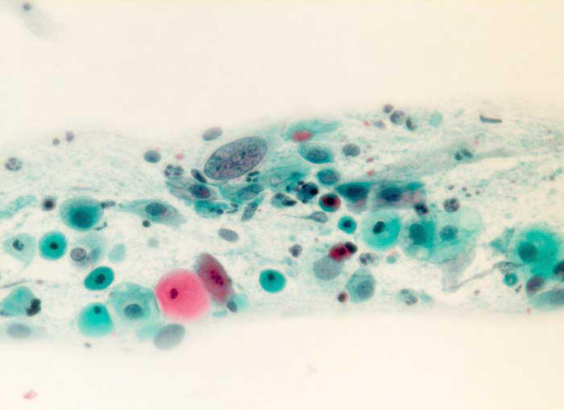 Verdacht auf Plattenepitheldysplasie ASCUS, atrophische Kolpitis