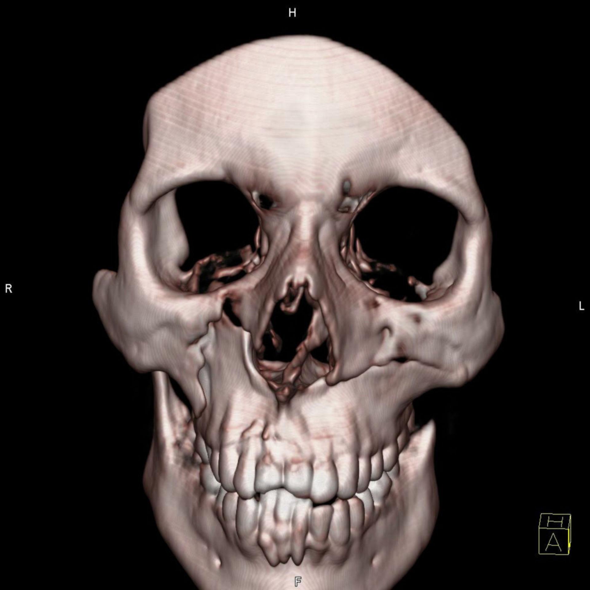 MRT-Aufnahme Schädel