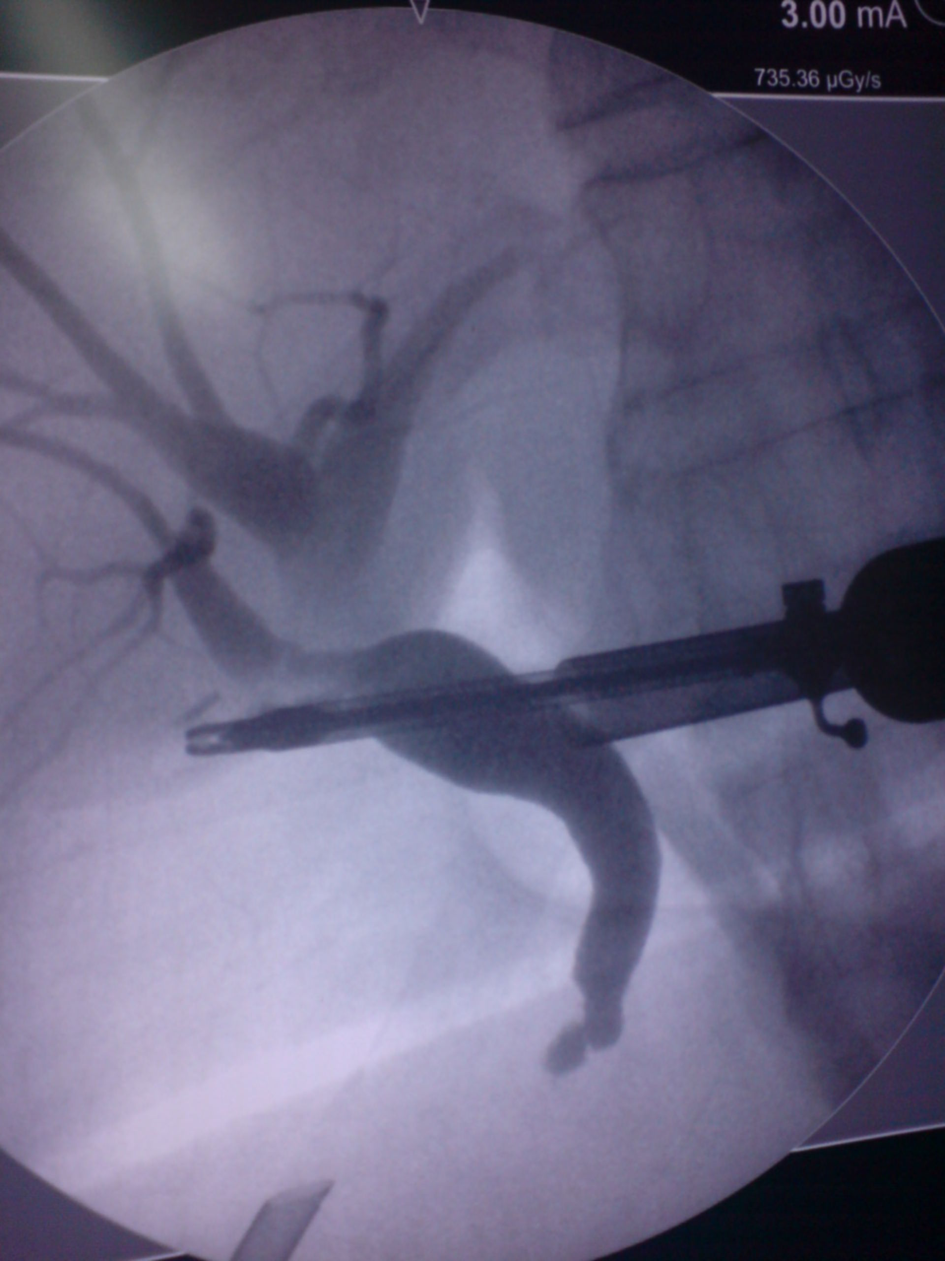 Cholangiography