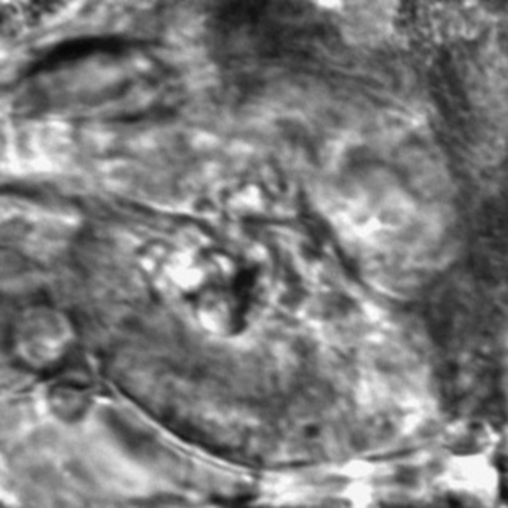 Caenorhabditis elegans - CIL:2699