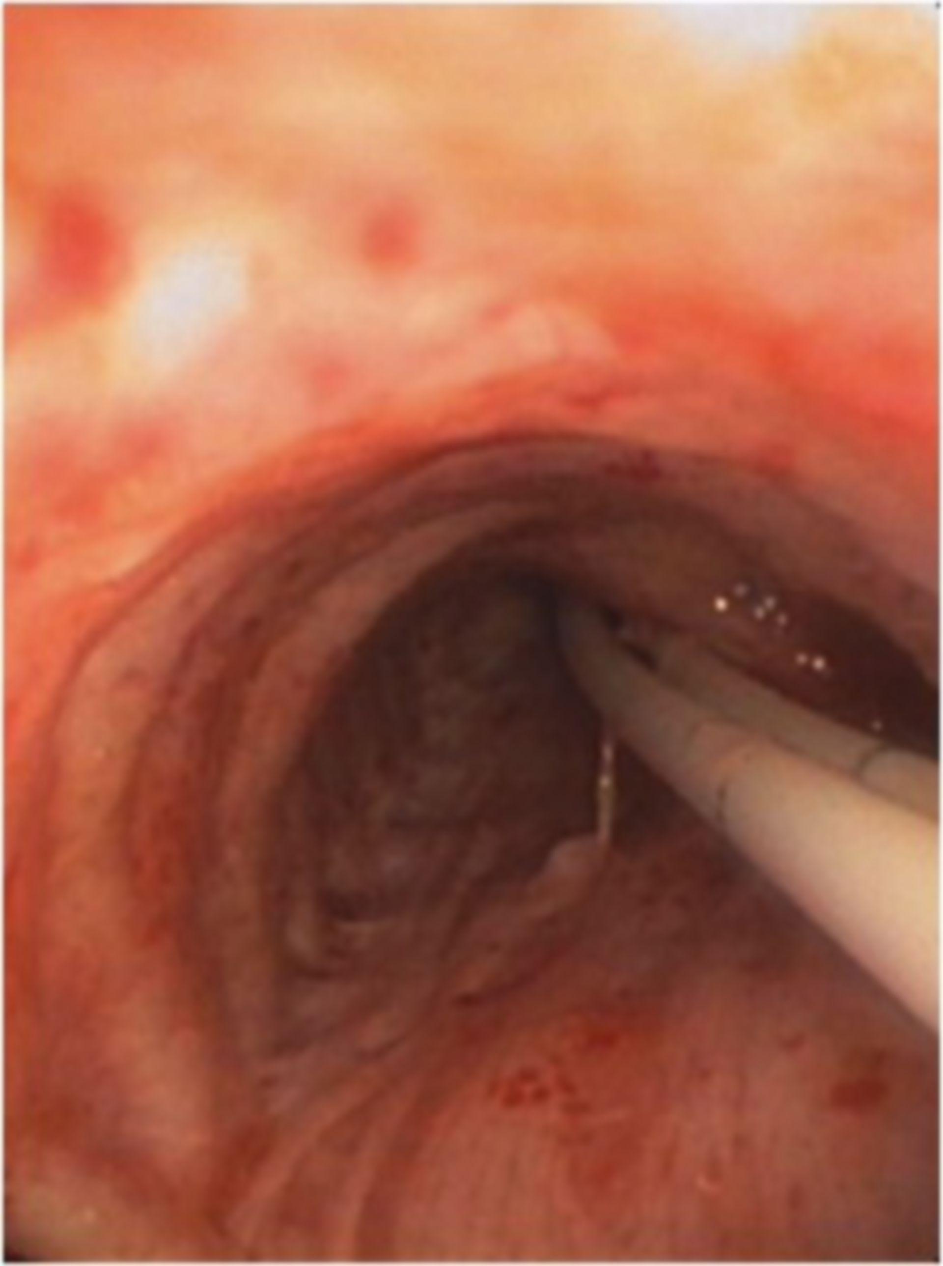 Endoskopische Blutungsstillung