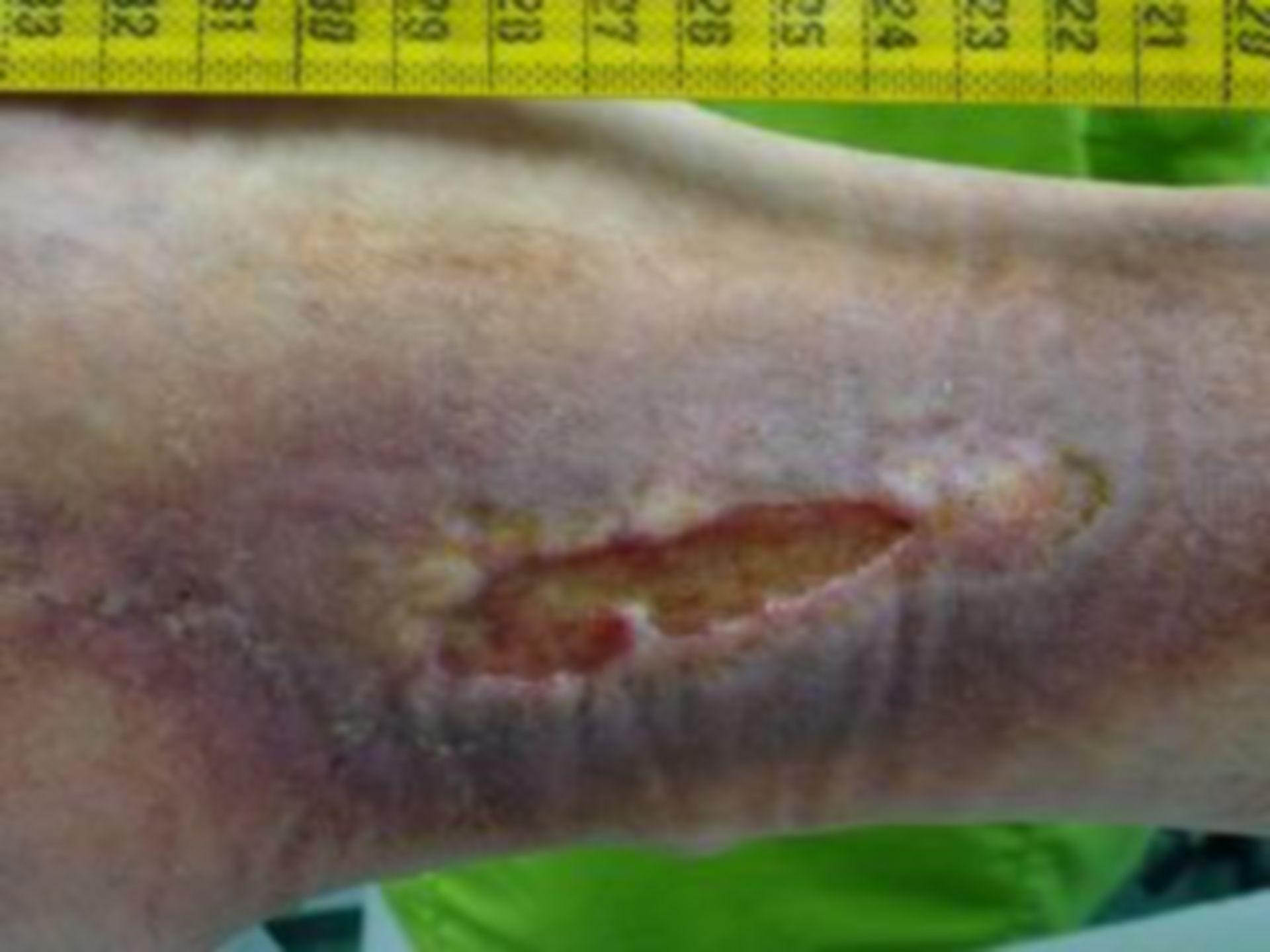 (4) Tratamiento de heridas, trombósis, úlcera del miembro inferior, 11.07.14
