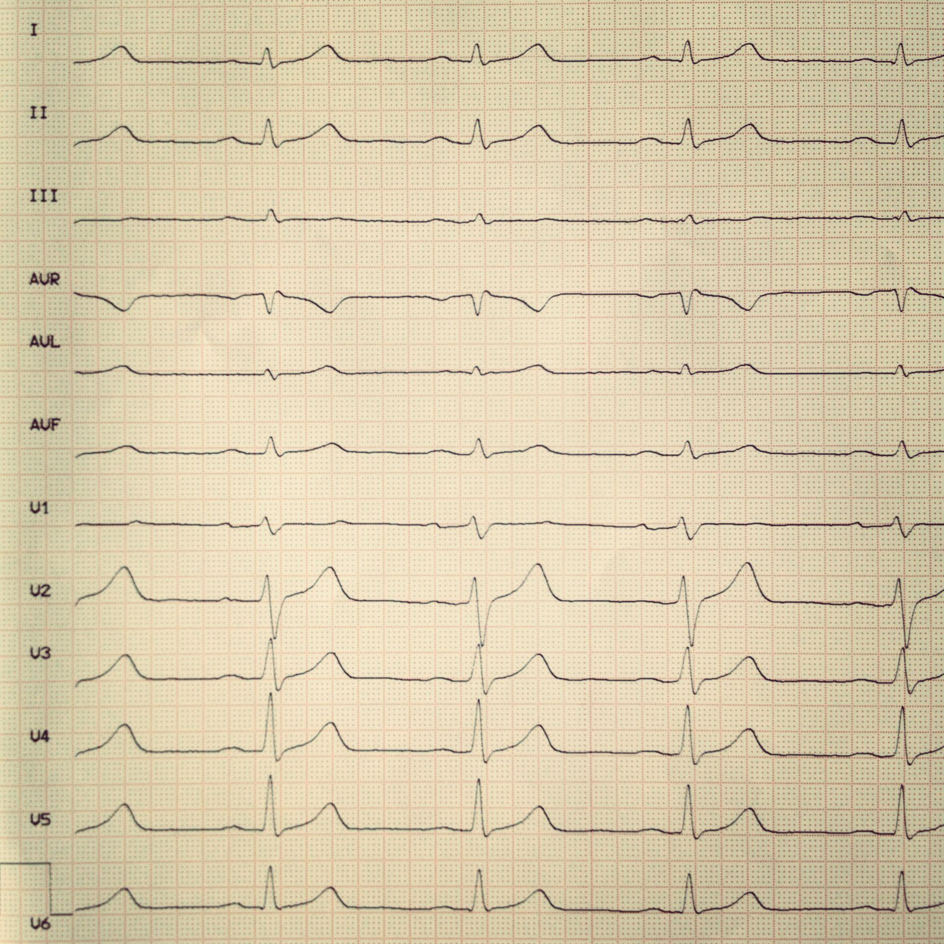 EKG 2b