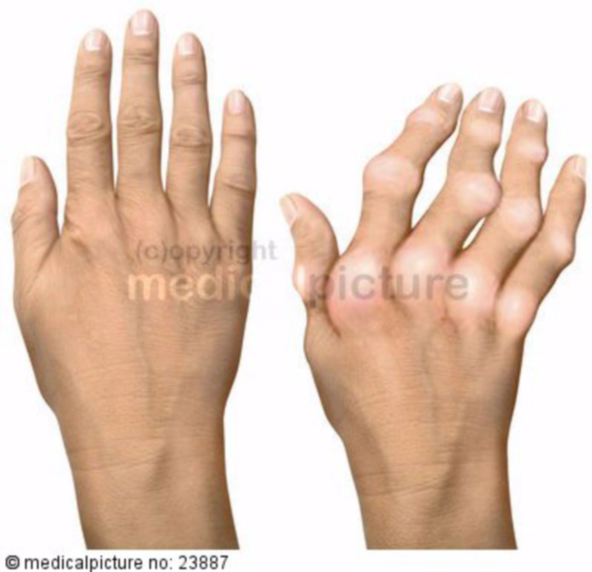 Deformed hand due to rheumatoid arthritis