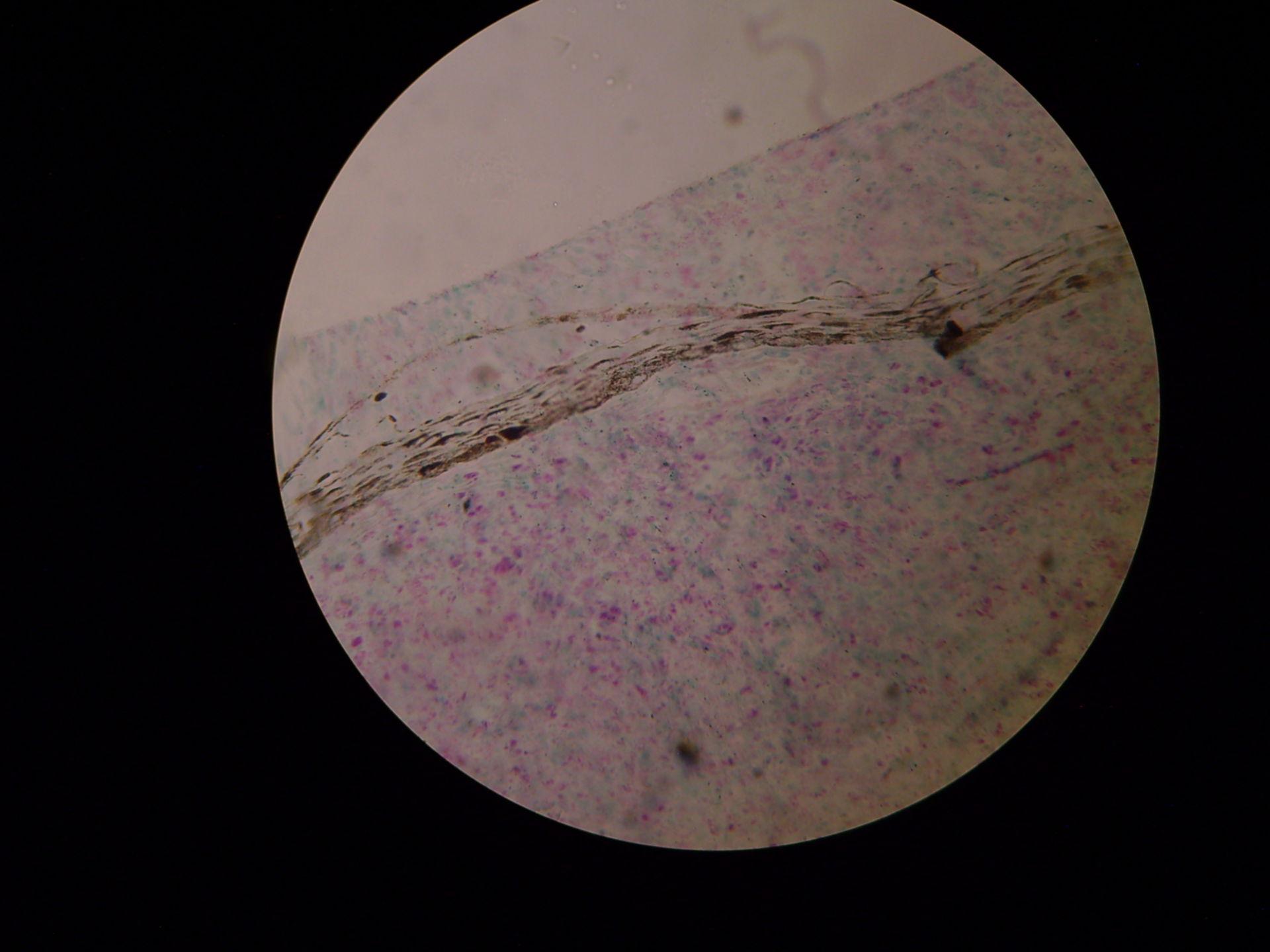 Lepromatöse Lepra Haut